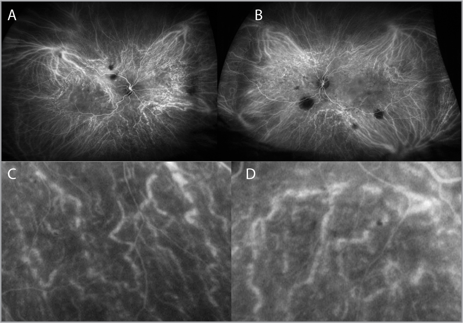 Low- and high-magnification images of indocyanine angiography in the right eye (A, C) and the left eye (B, D).