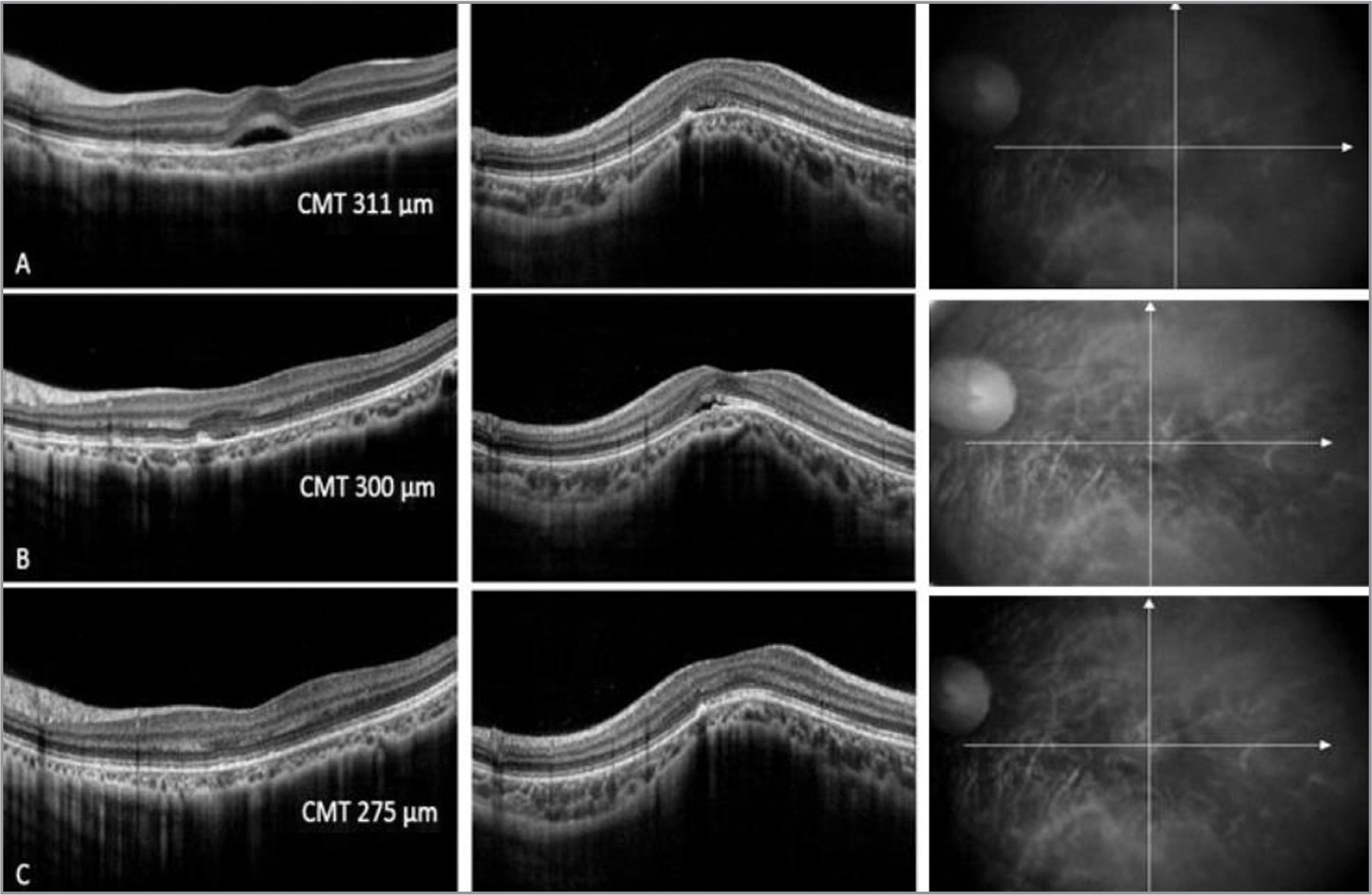 Macular optical coherence tomography after treatment with topical carbonic anhydrase inhibitors. Horizontal section (left) and vertical section (right). Central macular thickness (μm). (A) After 1 month of treatment. (B) After 2 months of treatment. (C) After 4 months of treatment (6 months).