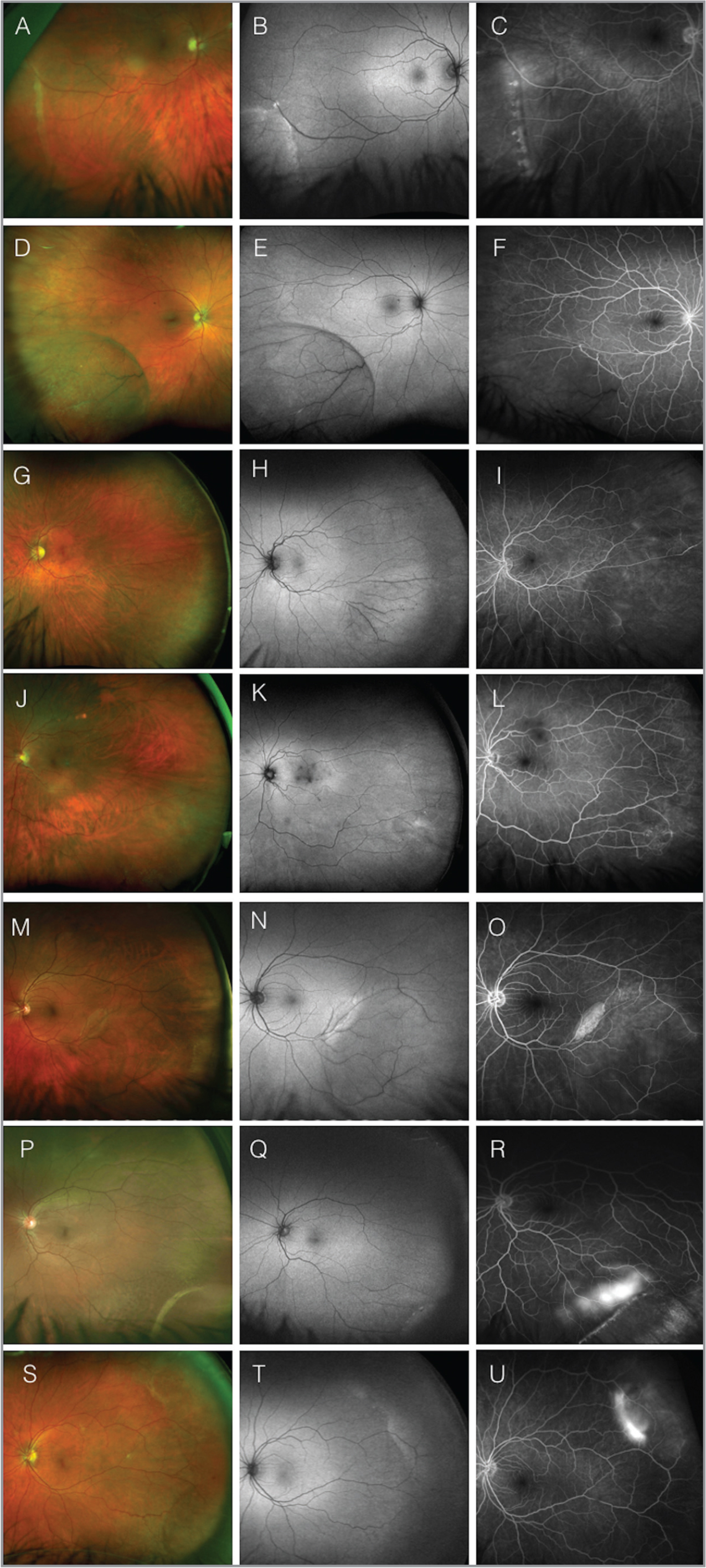 "Representative pseudocolor, fundus autofluorescence (FAF), and fluorescein angiography (FA) ultra-widefield images of seven different patients with degenerative retinoschisis. In the pseudocolor fundus images, outer retinal holes (A, M, P, S), Gunn's dots (D, G, J, P), isolated retinal hemorrhages (J, S), and ""dark"" vessels running the dome of the schisis cavity (D, G, M, P) can be observed. In the FAF images, localized hyperautofluorescence, due to unmasking of retinal pigment epithelium autofluorescence, can be identified in the areas corresponding to the outer retinal breaks (B, M, S). In the FA images, transmission of fluorescence is noted in the areas associated with outer retinal breaks (C, O, U). Delayed vascular filling in the early frames (F), vessel wall staining (I), areas of capillary nonperfusion (I), and diffuse vascular leakage (L, O, R) are also noted."
