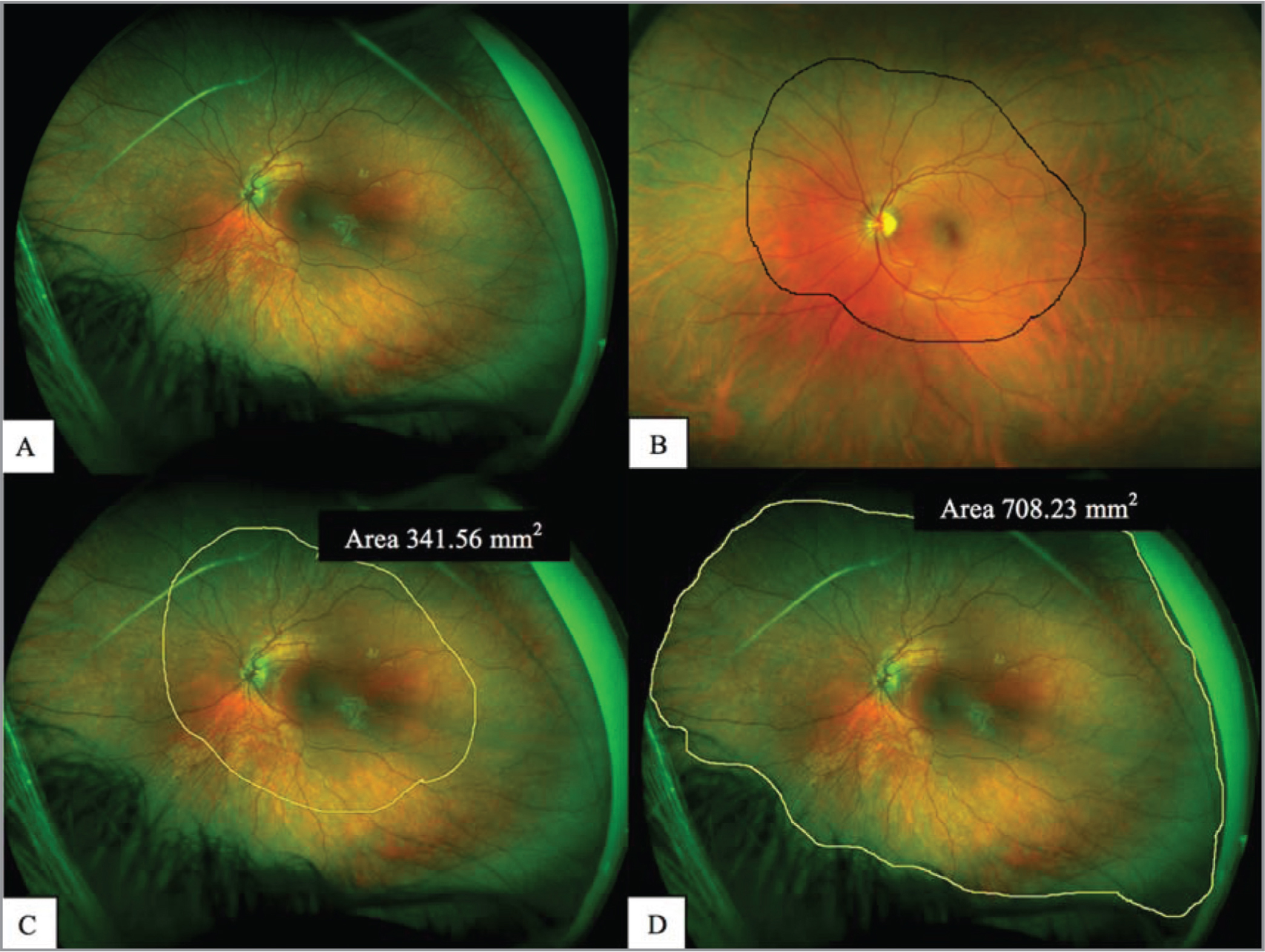 Methodology for retinal area measurements. (A) Ultra-widefield photograph (UWF) in a 4-year-old girl with left optic nerve hypoplasia. (B) Clinical drawing with area drawn on examination form by clinician. (C) Transposition of the clinical drawing freestyle to the UWF image. The area of retina evaluated with clinical exam was generated by the Optomap software. (D) UWF photograph with evaluated retina circled with the freestyle drawing tool. The retinal area measurement was generated by the Optomap software.