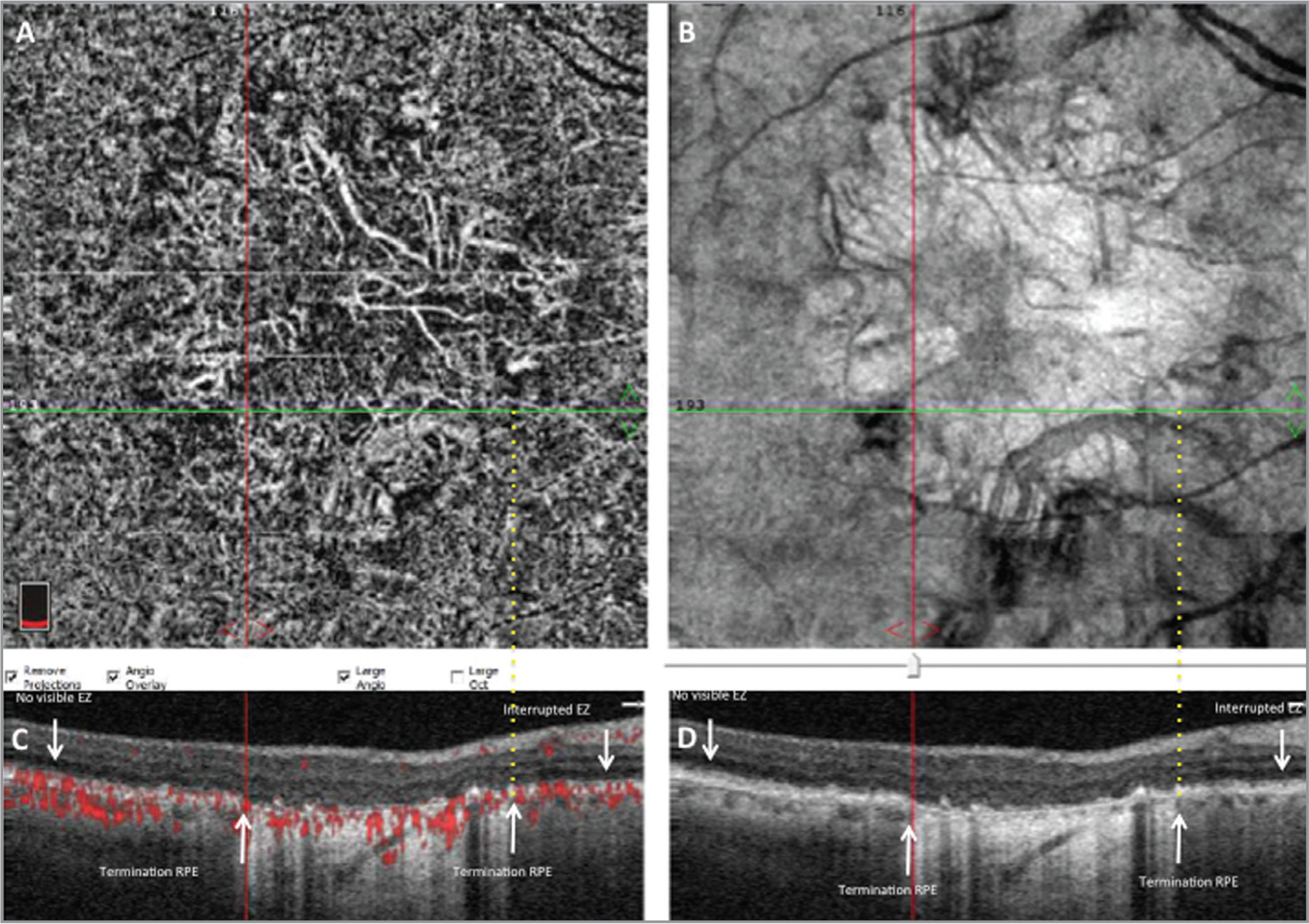 Example of a patient with geographic atrophy (GA). Choriocapillaris (CC) nonperfusion is visible within the margin of GA (complete retinal pigment epithelium (RPE) and outer retinal atrophy). (A) 6 mm × 6 mm optical coherence tomography (OCT) angiography acquisition of the posterior pole. CC segmentation showing the area of CC nonperfusion corresponding to the area of deep choroidal vessels visualization by hypertransmission. (B) En face OCT, same segmentation as A, showing hypertransmission corresponding to GA. The horizontal green line shows the location of B-scans (C, D). (C) Horizontal B-scan showing flow area in red. The white arrows show the termination of the RPE and the interrupted ellipsoid zone. The red line shows the temporal margin of RPE atrophy, and the yellow dotted line shows the nasal margin of RPE atrophy. (D) Horizontal B-scan, same location as C.