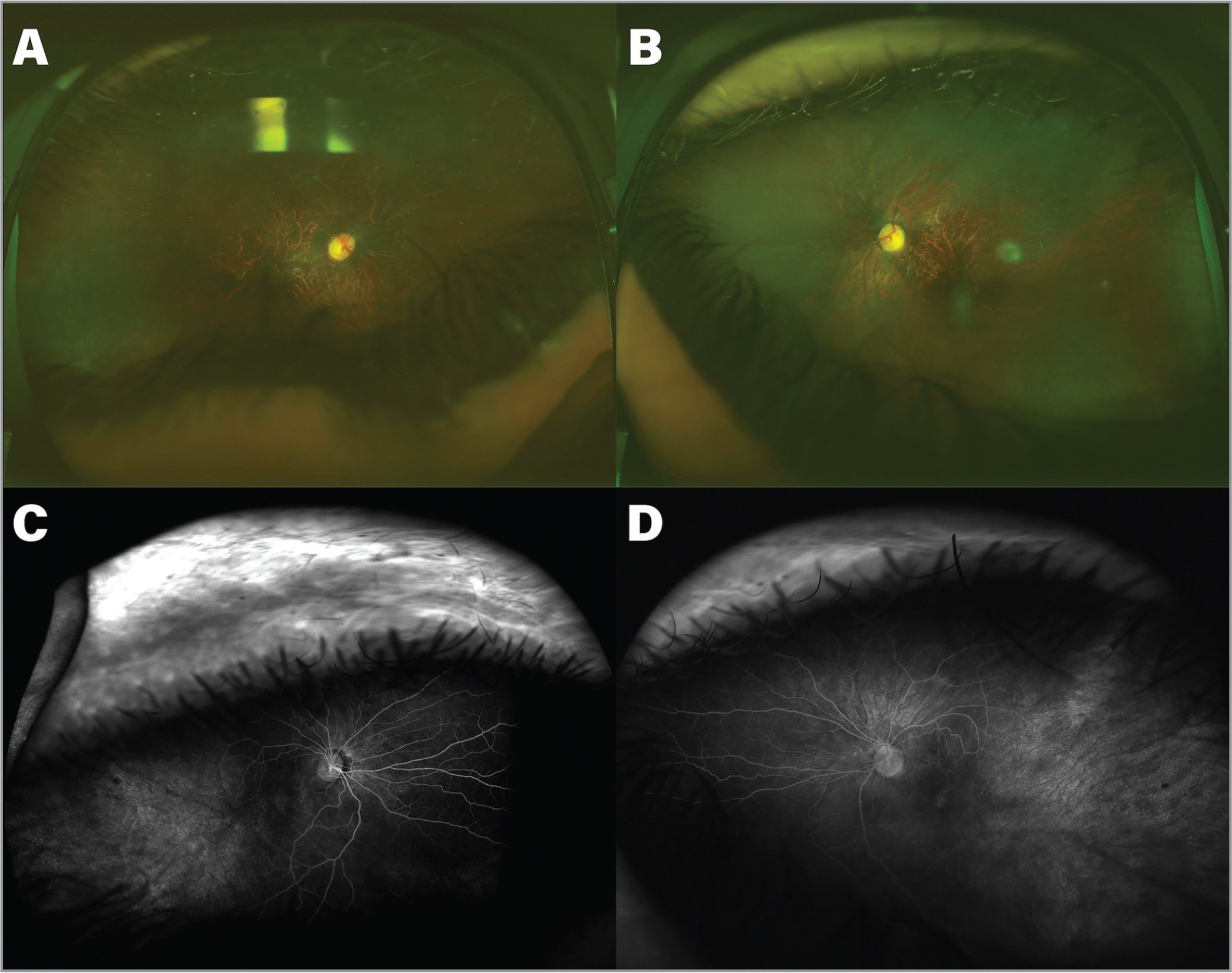 Retinal features of a 6-year-old male (Patient 2) with Pierson syndrome. (A, B) Fundus photos of the right and left eyes showing a tessellated fundus, optic disc changes similar to Patient 1, avascular peripheral retina, aberrant course of temporal arcades, and straightening of nasal retinal vessels. (C, D) Fluorescein angiography of both eyes showing, in addition to the vascular changes described clinically, the ischemic peripheral retinal changes.