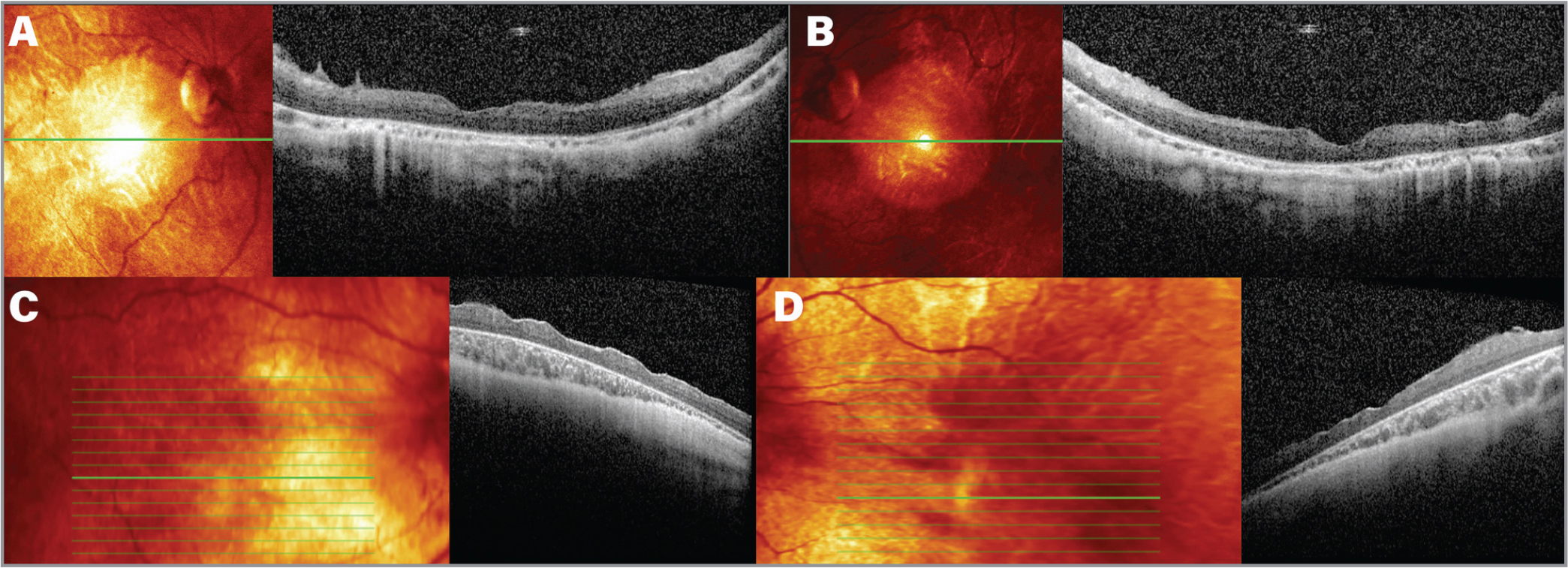 Spectral-domain optical coherence tomography (SD-OCT) of both eyes in two patients with Pierson syndrome (Patients 2 and 4). (A, B) SD-OCT foveal cuts in Patient 2 showing diffuse retinal thinning, poor retinal layers lamination, rudimentary foveal pits, poorly distinguishable photoreceptors, and choroidal thinning in both eyes. (C, D) SD-OCT foveal cuts in Patient 4 showing diffuse retinal thinning, poor retinal layers lamination, rudimentary foveal pits, poorly distinguishable photoreceptors, and progressive decrease in choroidal thickness.