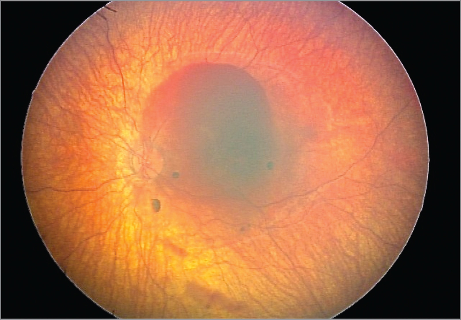Color fundus photograph of the left eye of a 5-month-old male shaken by his father with an arcade-to arcade sub-internal limiting membrane hemorrhage. He underwent a vitrectomy 7 weeks after initial presentation and later developed strabismus.