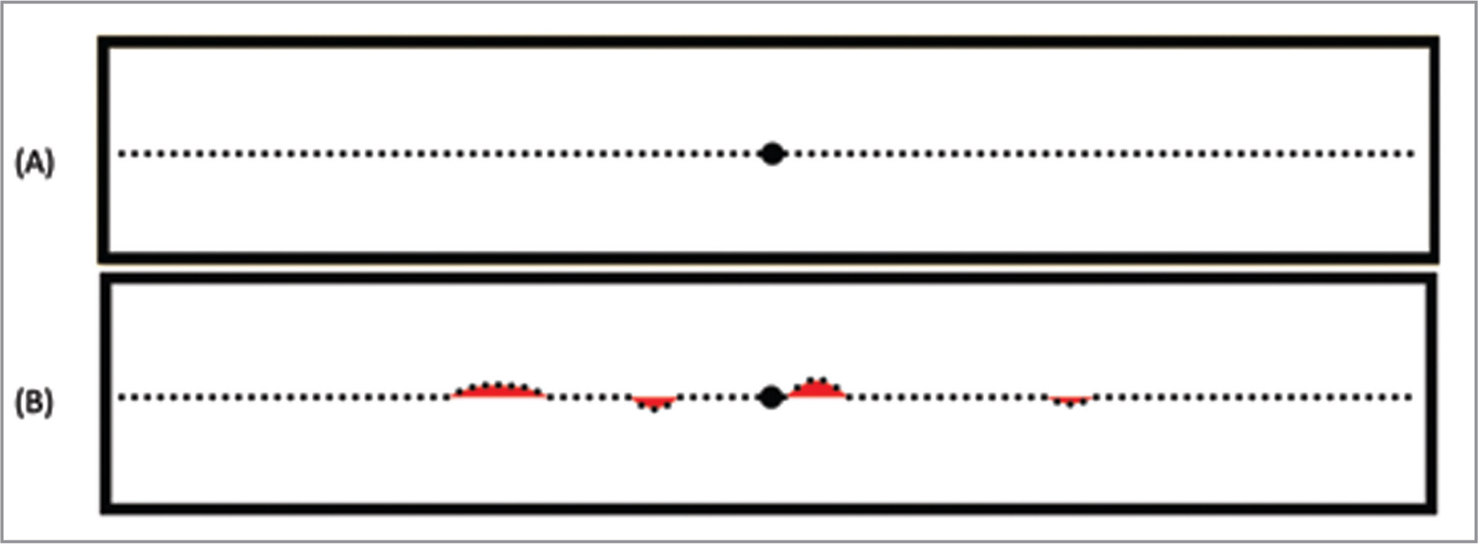 (A) Depiction of the objectively straight dotted line displayed on our software platform, which is centered on a central fixation point. (B) Schematic depiction of several foci where a subject may have deformed the straight line using the testing interface. The areas denoted in red represent the areas of space that are cumulatively summed to calculate manipulated area under the curve.