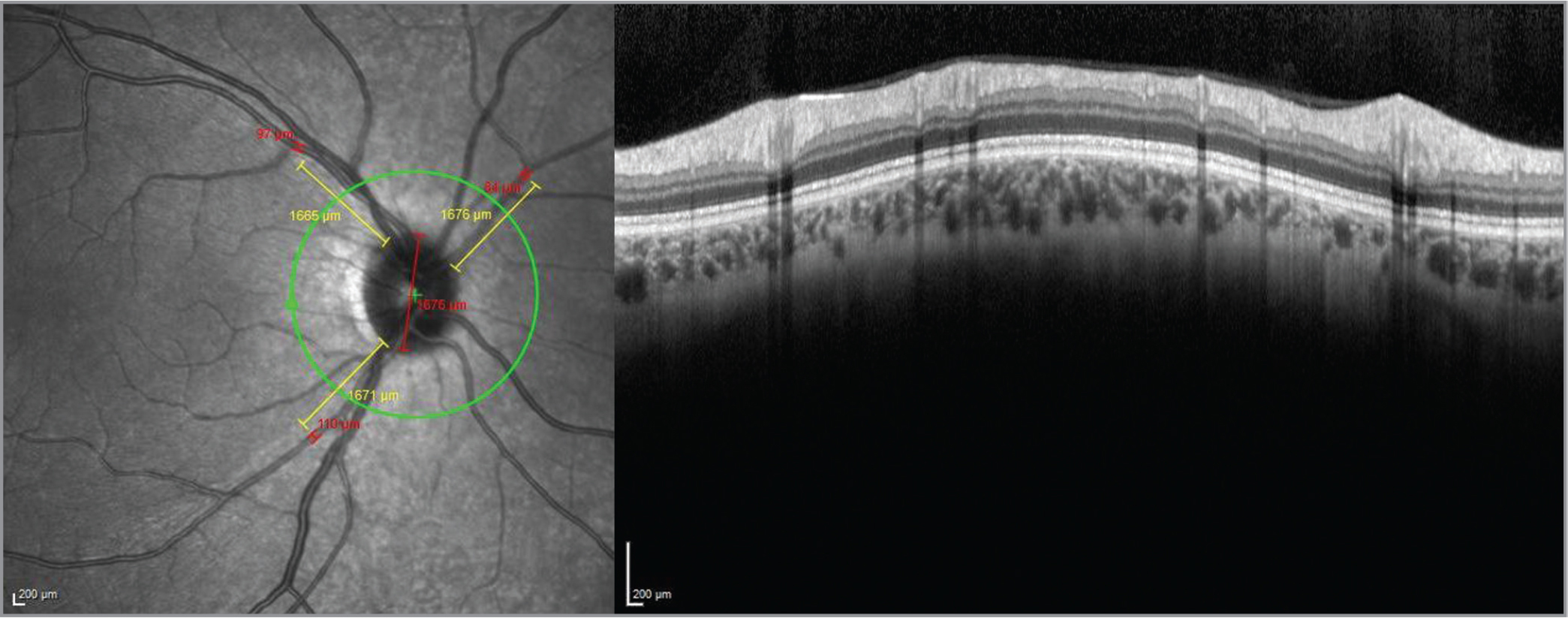 The retinal arteriolar caliber measurement by the manual caliber supplied by the Spectralis software (Heidelberg Engineering, Heidelberg, Germany) on the peripapillary retinal nerve fiber layer analysis screen. The three largest retinal arterioles passing through an area of 1 disc diameter from the optic disc margin were measured.