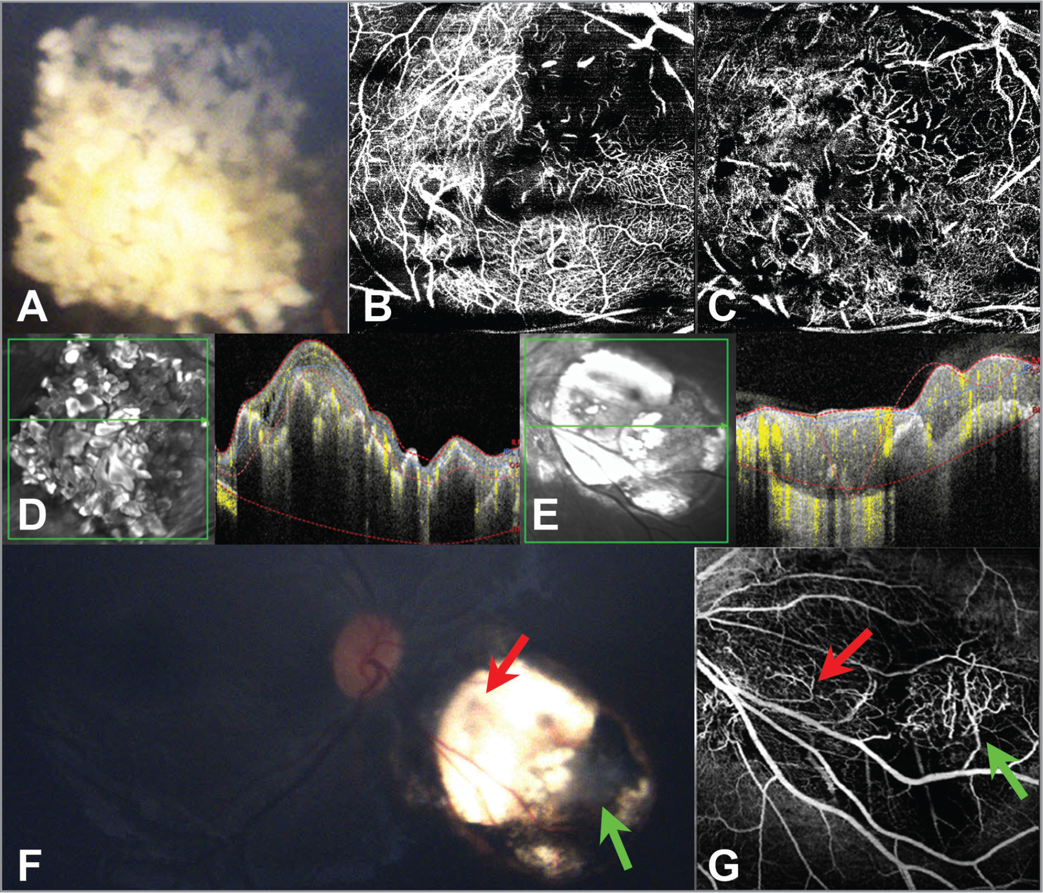 Multimodal imaging of Cases 2 and 3. Color fundus photo (A) of a retinoblastoma lesion from Case 2 shows type 1 regression. En face 20° × 20° optical coherence tomography angiography (OCTA) through the superficial aspect of this lesion (B) shows a dense intrinsic vascular network with fine vessel caliber, whereas OCTA through a deeper aspect of the lesion (C) shows a more dilated and tortuous network of intrinsic vessels and shadowing from the calcifications. (D) OCT B-scan with flow overlay of the lesion. This lesion was observed. (E) OCT B-scan with flow overlay of the retinoblastoma lesion from Case 3. Color fundus photo from Case 3 showing a retinoblastoma lesion with type 3 regression (F). The noncalcified remnant (red arrow) can be appreciated. There is an area with a pearly appearance concerning for tumor reactivation (green arrow). OCTA through the lesion (G) shows a prominent well demarcated vascular network with a dilated draining vessel in the area concerning for tumor reactivation (green arrow). OCTA also reveals finer lacey vascularity with diminutive feeder/draining vessels in the inactive noncalcified remnant (red arrow). The area concerning for tumor reactivation was treated with transpupillary thermotherapy.