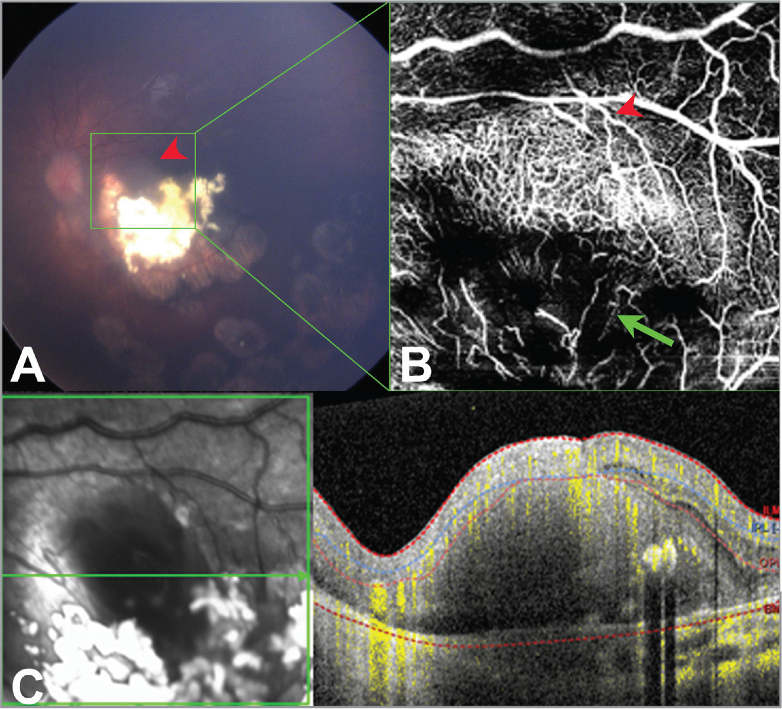 Multimodal imaging of Case 4. Fundus photo (A) showing a retinoblastoma lesion in the macula with type 3 regression. The noncalcified portion appears somewhat pearly (red arrowhead). En face 20° × 20° optical coherence tomography angiography (OCTA) through a portion of this lesion (outlined in green) shows dense intrinsic vascularity (B) in the superficial aspect of the noncalcified portion with dilated feeder/draining vessels (red arrowhead). The OCTA image also shows a deeper aspect of the calcified portion of this lesion, which reveals more dilated intrinsic vasculature (green arrow) and shadowing from the calcifications. (C) OCT B-scan with flow overlay of the lesion. The noncalcified portion of this lesion was treated with transpupillary thermotherapy.