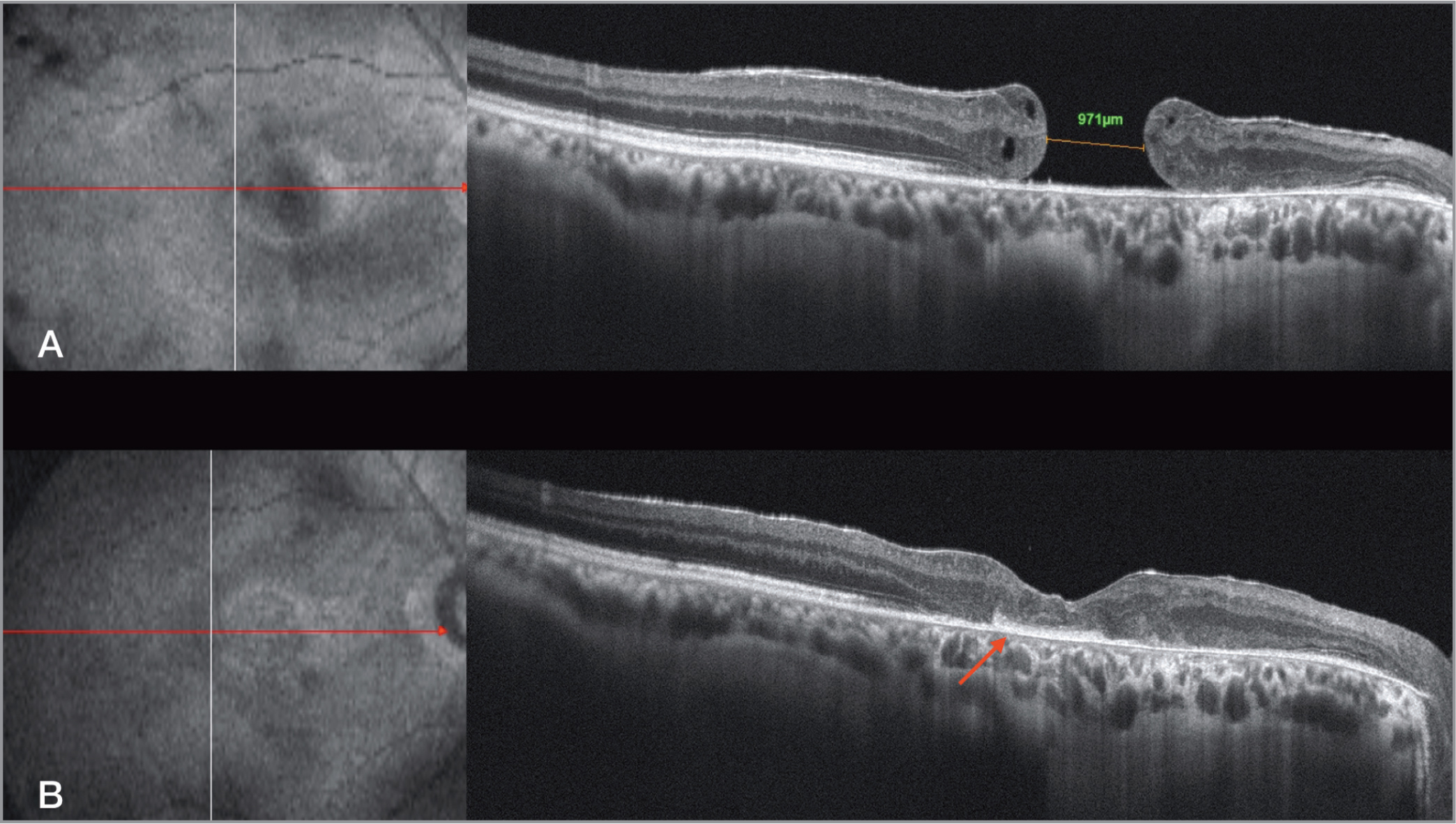 Optical coherence tomography (OCT) shows chronic post-traumatic macular hole (MH) with flat margin and an epiretinal membrane. The caliper indicates the internal dimension of the MH (A). Three-month OCT showing amniotic membrane plug (red arrow) well positioned under the retina and complete closure of the MH (B).