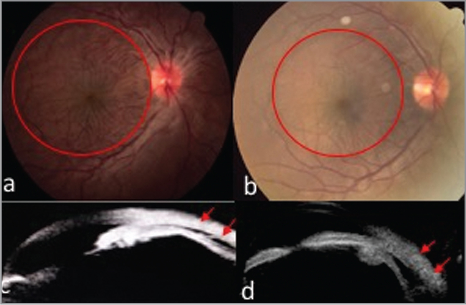 (a, b) Preoperative images. (b, d) Postoperative images. Color retinography: (a) evidence of hypotonic maculopathy, (b) residual subtle macular folds. (c, d) Ultrabiomicroscopy: representative images of ciliochoroidal detachment.