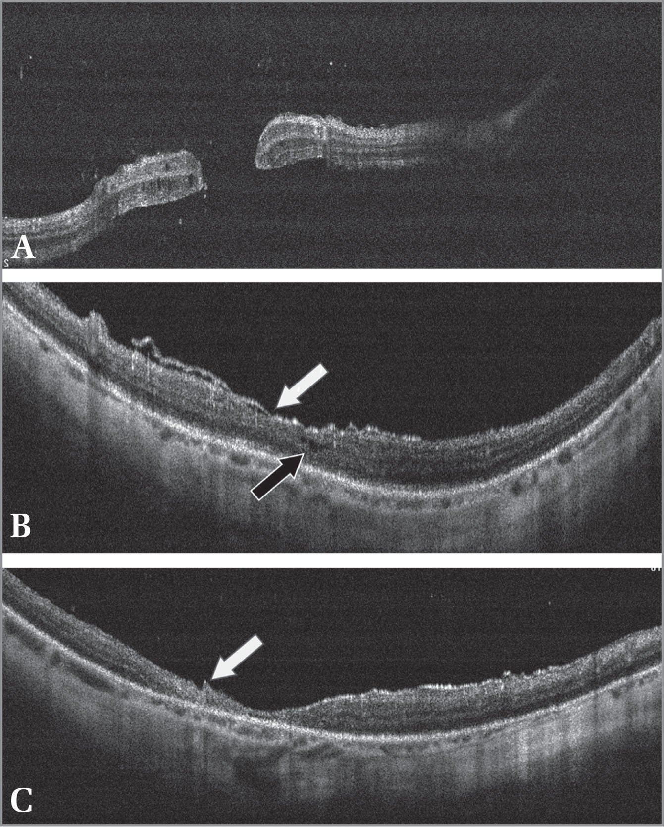 (A) Preoperative spectral-domain optical coherence tomography (SD-OCT) image showing recurrent retinal detachment (RD) with macular hole (MH). (B) One-month follow-up SD-OCT image of the macular area with myopic MH-associated RD starting to close (black arrow) and overlying amniotic membrane graft (AMG) (white arrow). (C) Six-month follow-up SD-OCT image of the macular area with maintained sealed MMH and still seen edge of the AMG (white arrow).
