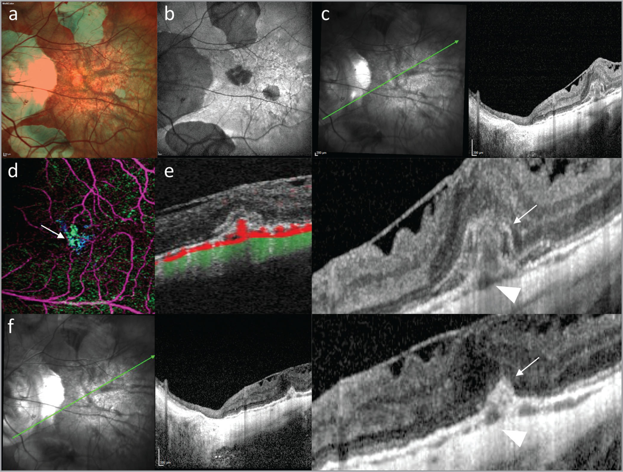 Multimodal imaging of retinal pigment epithelium (RPE) hump associated with myopic choroidal neovascularization. Multicolor imaging (a) and fundus autofluorescence (b) revealed multiple patchy areas of RPE atrophy and lacquer cracks; structural optical coherence tomography (OCT) (c) illustrated the presence of an epiretinal membrane associated with subretinal hyperreflective material (arrow) over an RPE hump (arrowhead). En face (d) and B-scan (e) OCT angiography confirmed the presence of choroidal neovascularization (CNV; arrow). After 6 months of treatment with intravitreal injections of anti-vascular endothelial growth factor agents, OCT (f) shows a significant reduction of the subretinal hyperreflective material with scarring of the choroidal neovascularization (arrow) over the RPE hump (arrowhead).