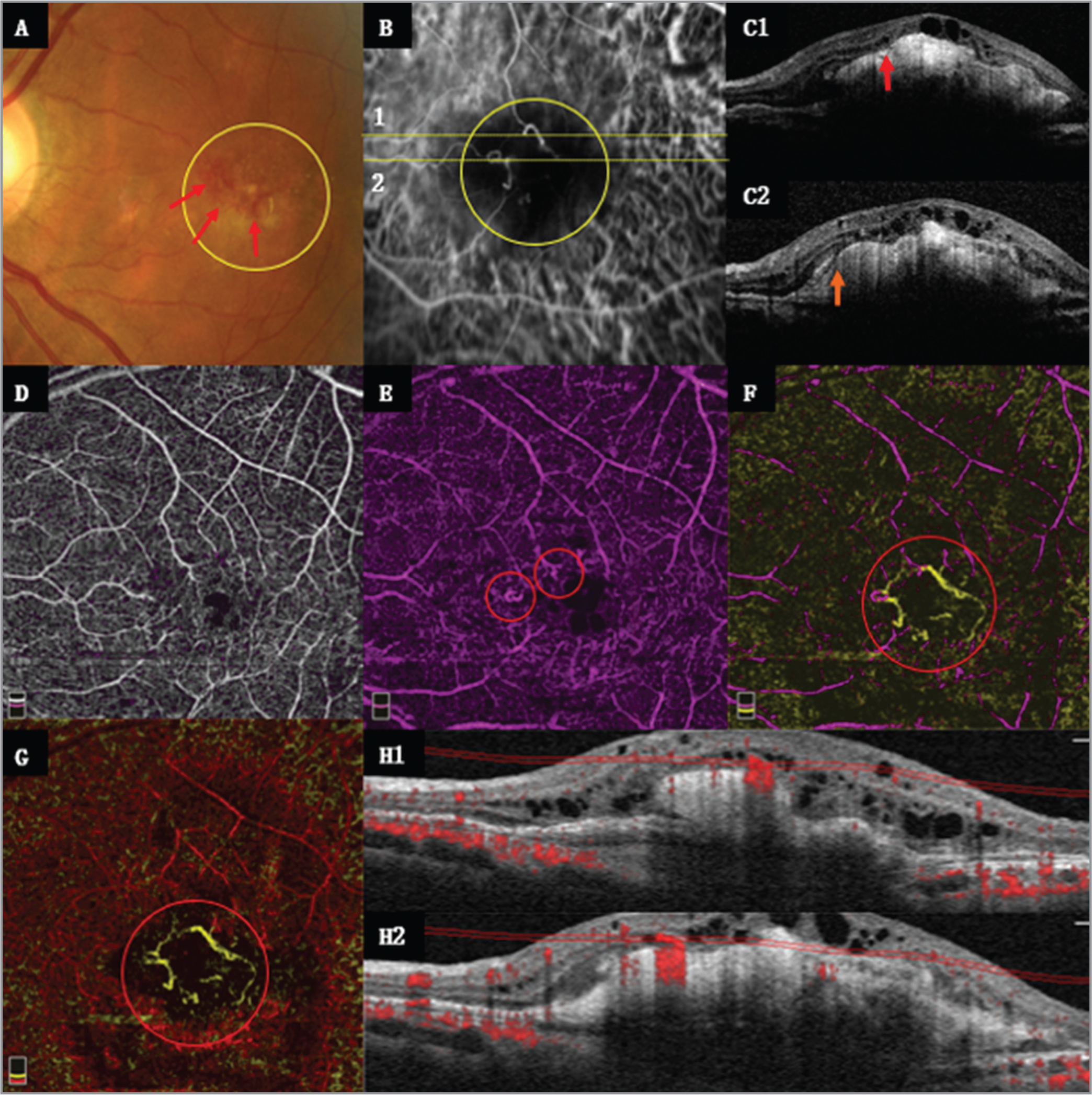 Case 2. Patient 4, a 64-year-old woman, left eye. (A) Fundus photography showed focal supraretinal hemorrhage (red arrow) and several hard exudations on the macular area (yellow circle). (B) The mid-indocyanine green angiography (ICGA) image showed two irregular vessel structure lesions (yellow circle). (C1, C2) Optical coherence tomography (OCT) images, which correspond to section line 1, 2 (yellow dotted line) in Figure 4B, respectively, showed two unclear lumen-like structures (red circle) and rupture of pigment membrane (red arrow). (D-G) OCT angiography (OCTA) en face images correspond to superficial, deep, outer retina, and choroidal cap, respectively. (H1, H2) OCTA B-scan images, which correspond to section line 1, 2 (yellow dotted line) in Figure 4B, respectively, showed high blood flow signals in the lumen-like structures (double red line). The rupture of the pigment membrane was covered by the projection of the blood flow signal.