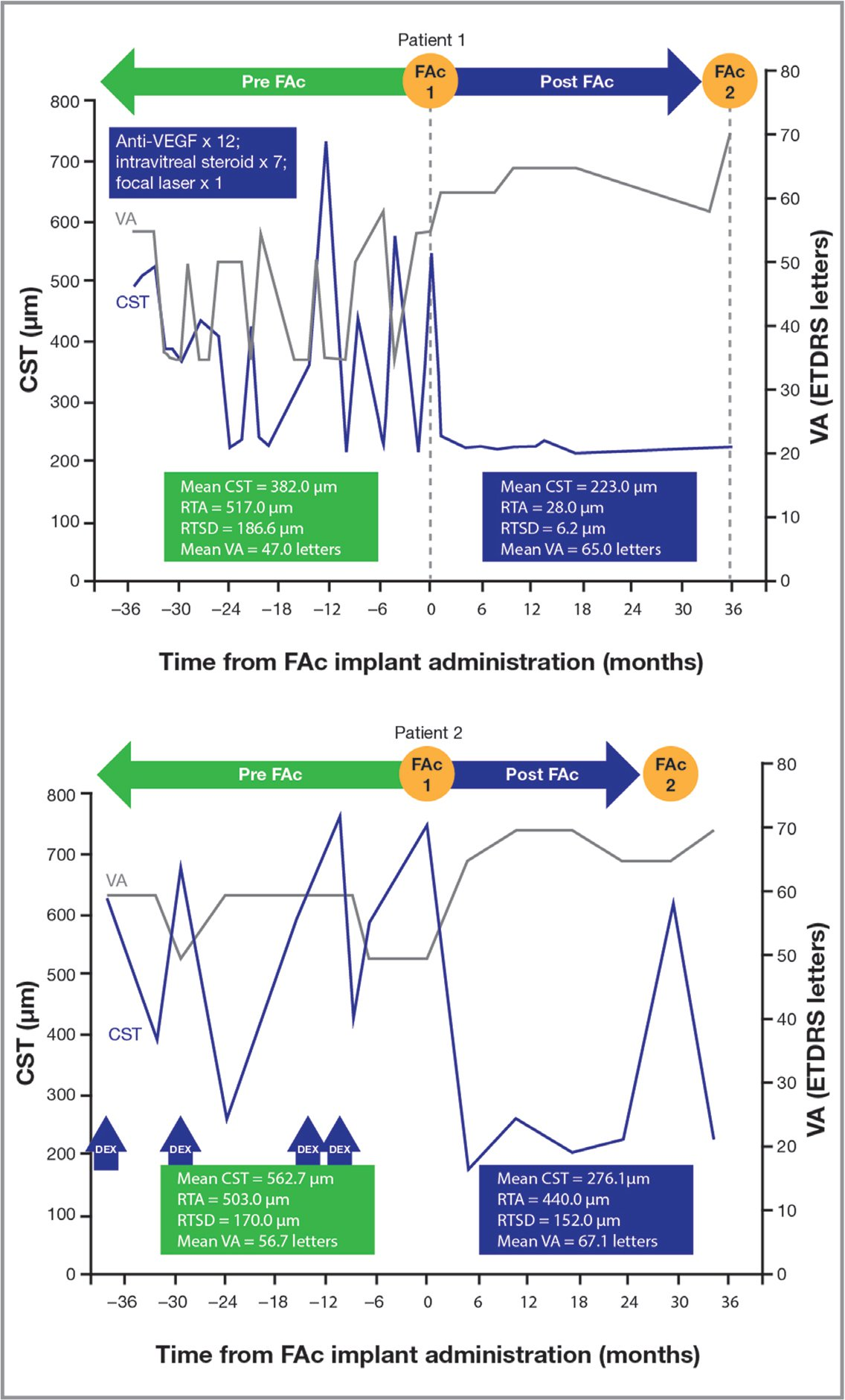 The effect of transitioning from discontinuous therapies to fluocinolone acetonide (FAc) implant treatment on central subfield thickness (CST), retinal thickness amplitude (RTA), retinal thickness standard deviation (RTSD), and visual acuity (VA) in two illustrative patient case studies (not from the USER dataset). Patient 1 data courtesy of Dhoot DS. Case data presented at: Scientific Advisory Board meeting, American Academy of Ophthalmology Annual Meeting; October 28, 2018; Chicago, IL. Patient 2 data courtesy of Singh P, Chedid A, Deuchler SK, Kohnen T, Muller M, Koch FH. The efficacy and safety outcomes of the 0.19 mg fluocinolone acetonide implant after prior treatment with the 0.7mg dexamethasone implant in patients with diabetic macular edema. Int Med Case Rep J. 2018;15(11): 265–269.Anti-VEGF = anti-vascular endothelial growth factor; ETDRS = Early Treatment Diabetic Retinopathy Study