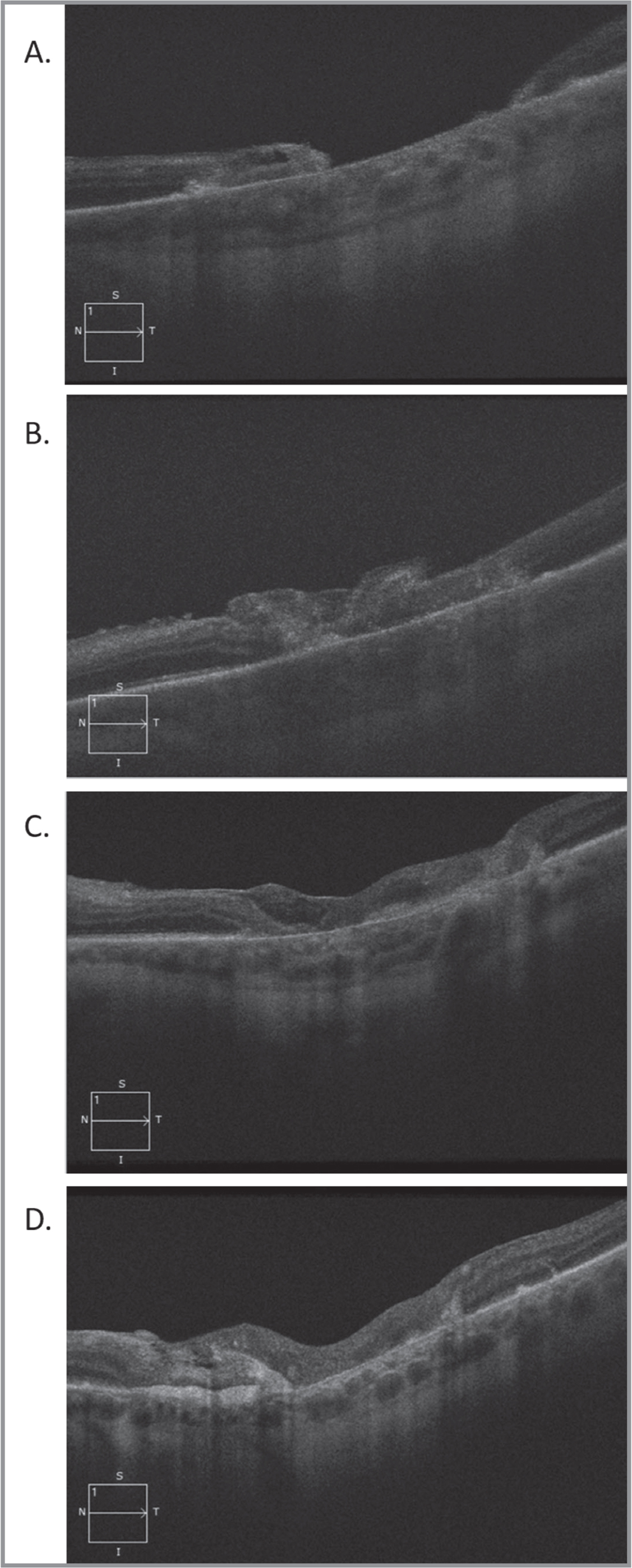 Autologous retinal transplant for a large traumatic macular hole (MH). A 59-year-old man with a history of a metal intraocular foreign body in the macula resulting in a large MH with underlying choroidal atrophy (A) and count fingers at 4 feet vision. He underwent vitrectomy, internal limiting membrane peeling, autologous retina transplant into the MH, and silicone oil tamponade for 3 months. The patient had hole closure with gradual integration of the autologous retina tissue over 1 week, 3 months, and 6 months after surgery. His best-corrected visual acuity improved to 20/200-1.
