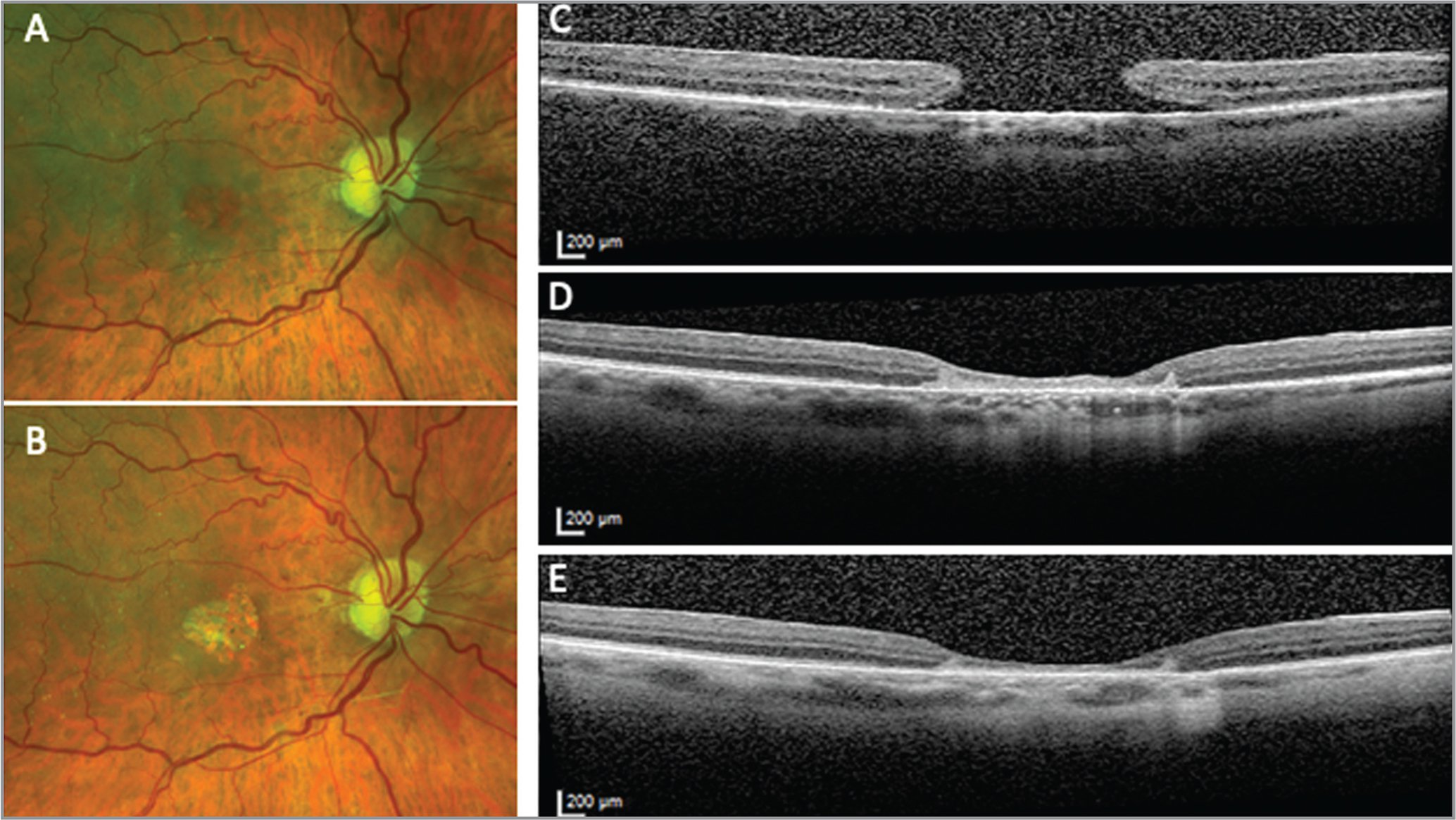 Subretinal human amniotic membrane (AM) graft for a chronic, large macular hole (MH). A 65-year-old woman presented with a 1,310 µm diameter MH of 3 years' duration that had previously failed repair. A 2-mm human AM graft was placed in a subretinal position. Visual acuity improved from 20/100 to 20/60. (A) Widefield fundus photography of preoperative and (B) postoperative MH. (C) Optical coherence tomography scans show preoperative large MH with (D) closure of the hole at 2 weeks and (E) improving retinal morphology at 10 weeks.