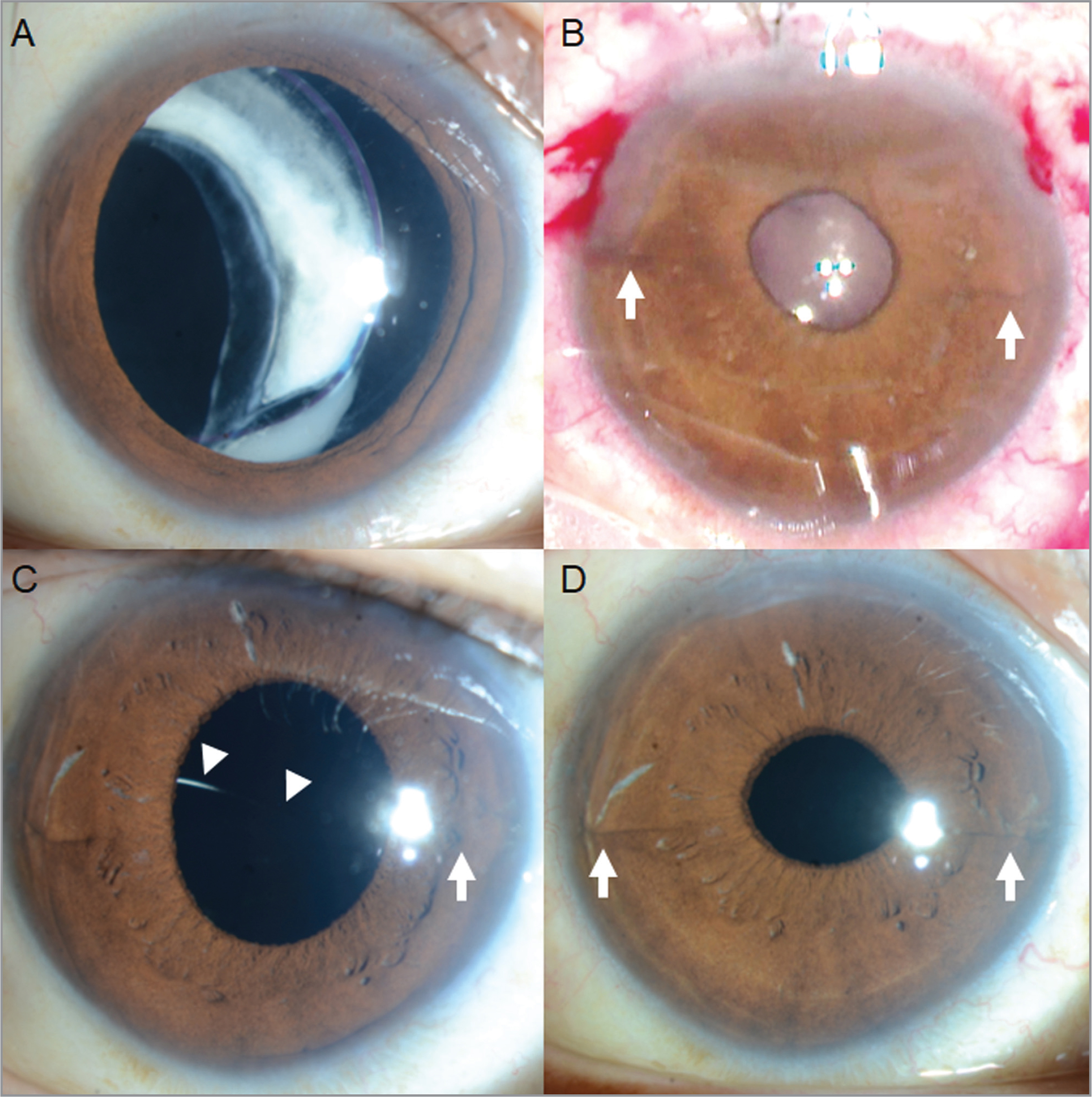Case 6. (A) The right eye of 49-year-old man shows intraocular lens (IOL) with dislocation of the capsular bag. (B) Surgical photograph shows an anterior segment after retropupillary implantation of the iris-claw IOL (arrows). (C) Ninety-six days after first surgery, spontaneous IOL dislocation into the vitreous body (arrowheads) with disenclavated nasal haptic is observed (arrow). (D) After reenclavation, the iris tissue shows enclavation into the haptics at 3-o'clock and 9-o'clock position (arrows).