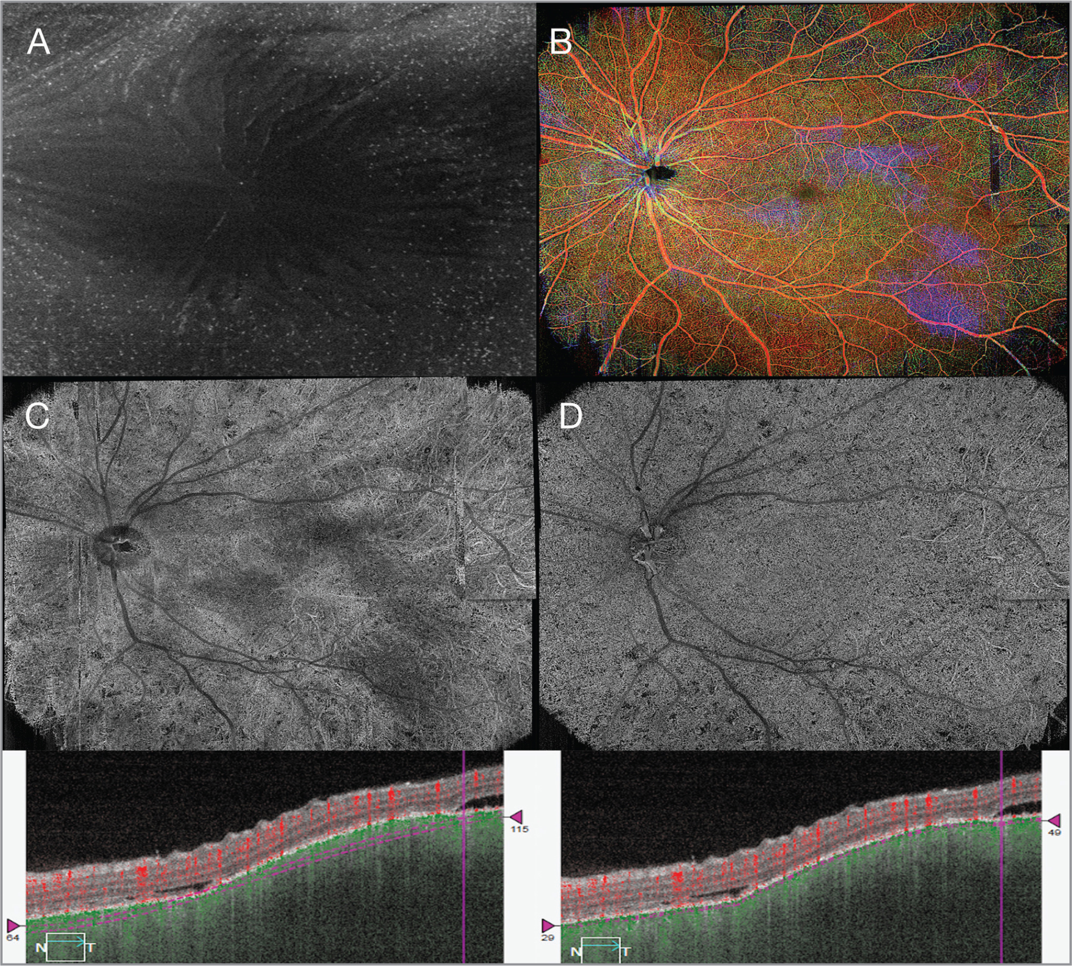 Widefield swept-source optical coherence tomography angiography showing (A) 6 mm x 6 mm image of the vitreoretinal interface showing vitreous cells, (B) retina depth-encoded images with extensive areas of multifocal exudative retinal detachments (RDs), (C) choroid layer with focal hypoperfusion areas and signal attenuation artifacts form the overlying RDs with respective B-scan, and (D) choriocapillaris with characteristic areas of flow void and respective B-scan.