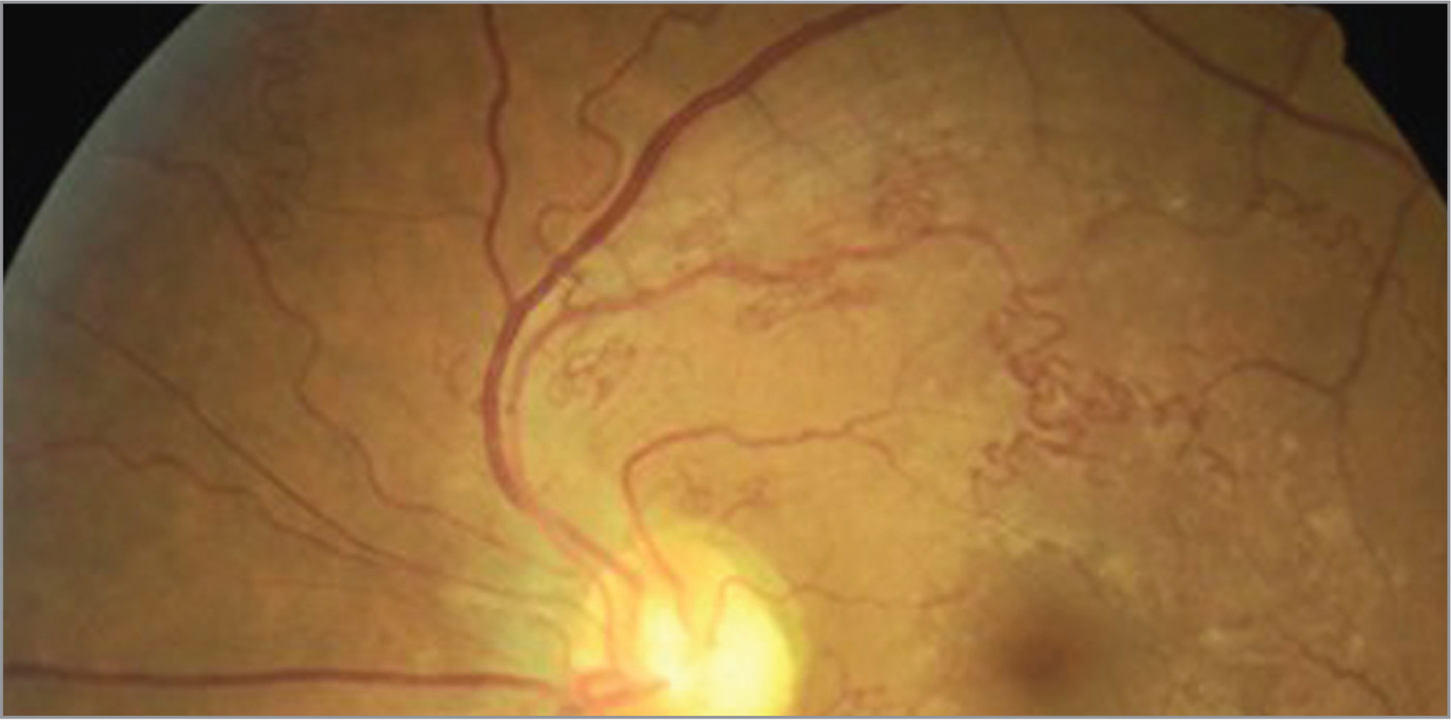 Fundus photographs of the right (A) and left eye (B) showed bilateral pronounced tortuosity of the second- and third-order arterioles in the macular and peripapillary region with situs inversus of the optic disc in the left eye (B).