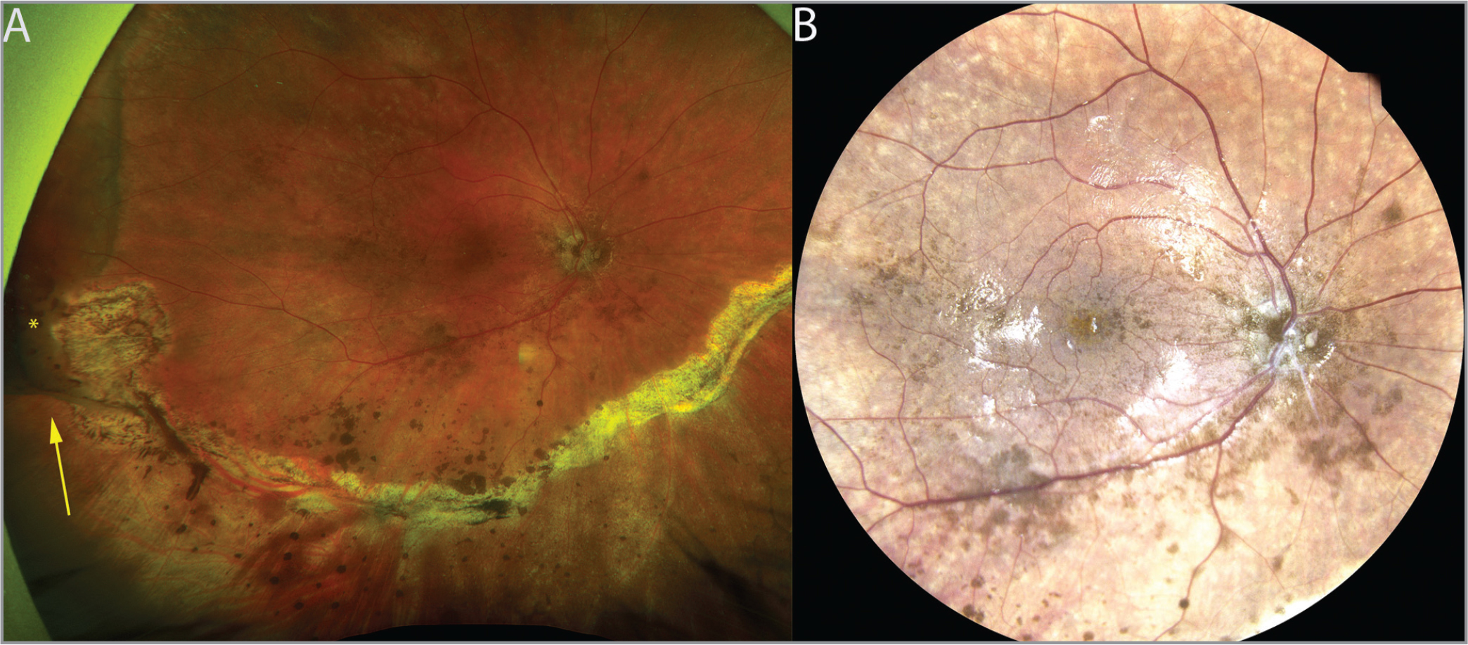 (A) Widefield fundus photo (Optos, Marlborough, MA) of the right eye demonstrates a posteriorly attached retina, inferior retinectomy, and silicone oil fill. There is extensive preretinal pigment deposition on the inferior hemiretina. The temporal margin of the retinectomy is elevated with extensive pigment release around the edge (arrow). There is a temporal retinal detachment anterior to the buckle (*) (B) Eidon (CenterVue, Padova, Italy) photograph of fundus imaging provides a higher magnification image highlighting the extent of preretinal pigment deposition.