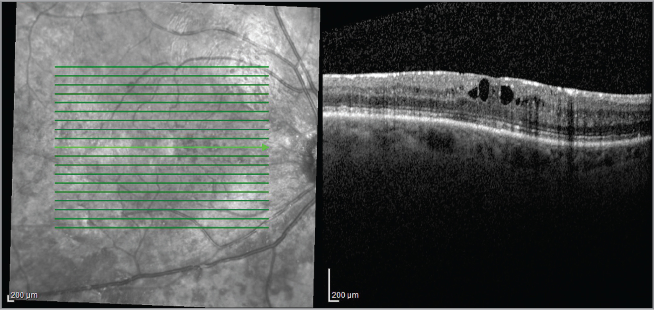 Spectral-domain optical coherence tomography imaging showing mild macular edema and epiretinal membrane. Focal dark areas on the near-infrared image highlight the preretinal pigment deposits.