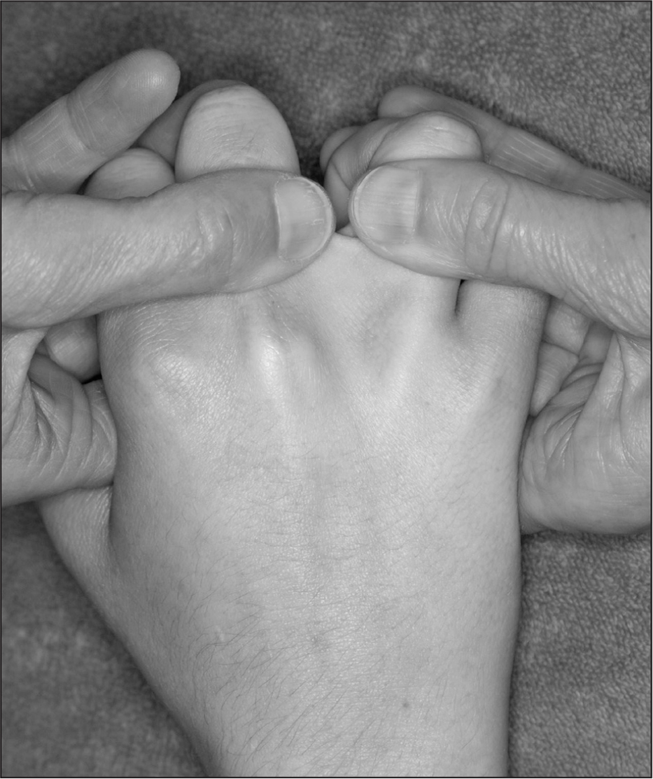 A maneuver that may produce pain with saddle syndrome: metacarpal phalangeal joint extension with interphalangeal joint flexion combined with passive abduction.