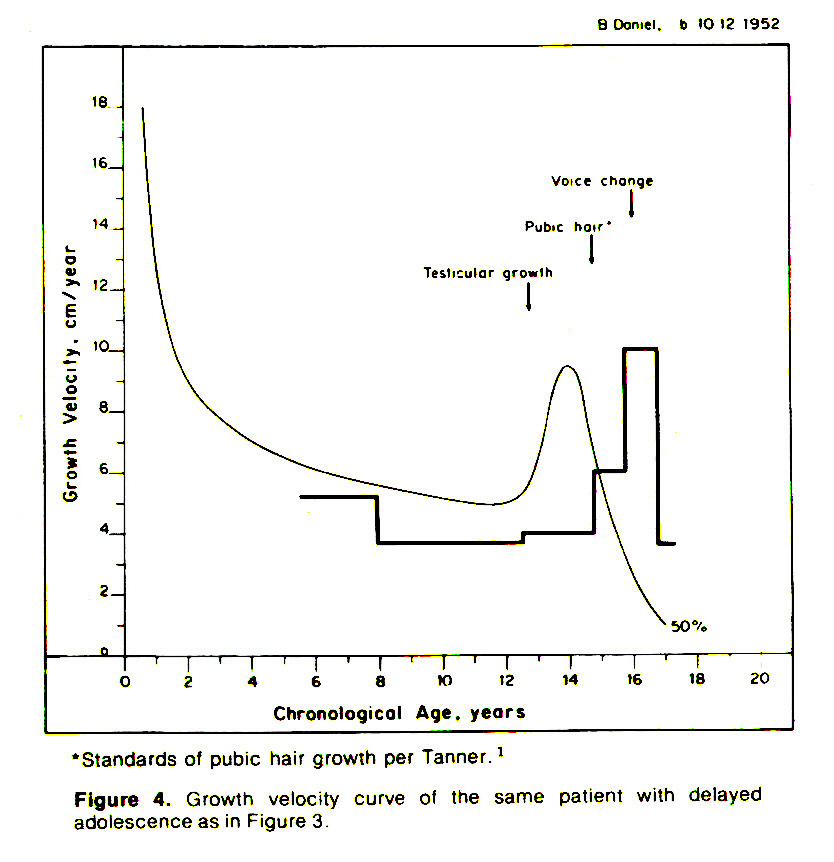 Figure 4. Growth velocity curve of the same patient with delayed adolescence as in Figure 3.