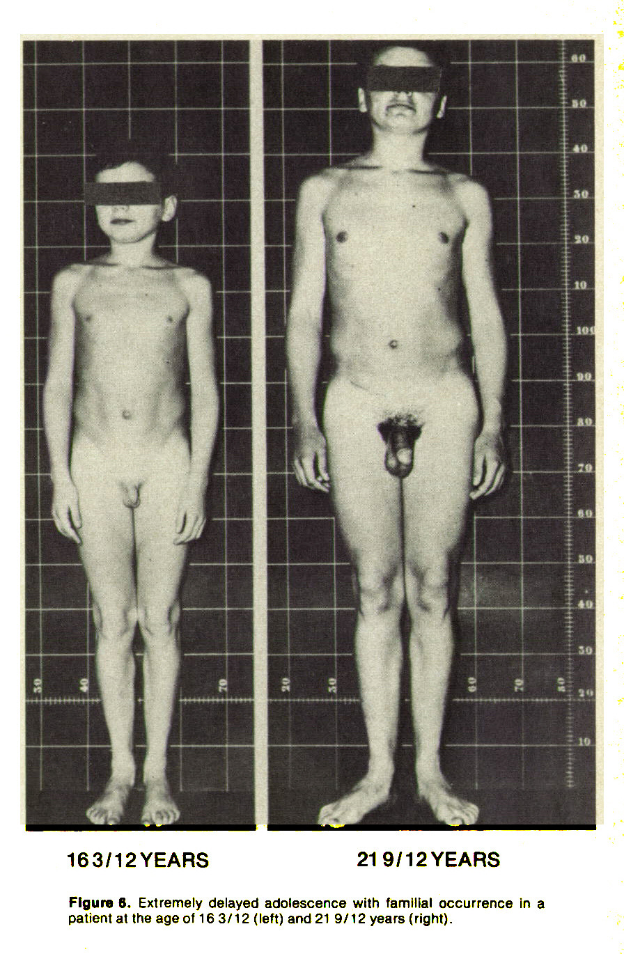 Figure 6. Extremely delayed adolescence with familial occurrence in a patient at the age of 163/12 (left) and 219/12 years (right).