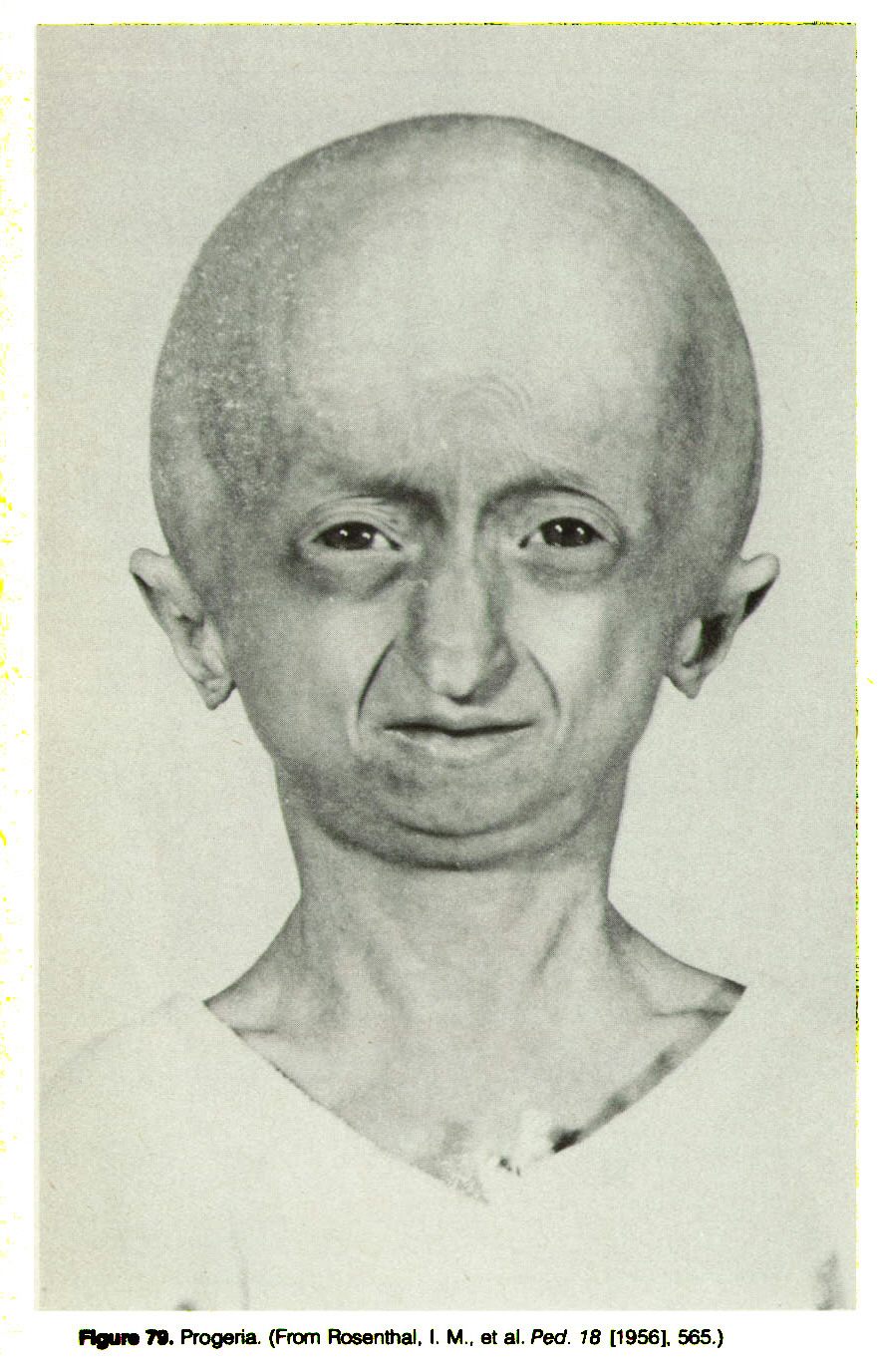 Figure 79. Progeria. (From Rosenthal, I. M., at al. Ped. 18 [1956], 565.)