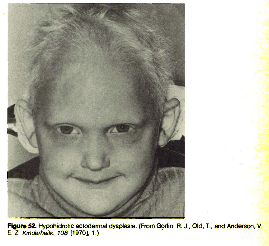 Figure 52. Hypohidrotic ectodermal dysplasia. (From Gorlin, R. J., Old, T., and Anderson. V. E. Z. Kinderheilk. 108 [1970], 1.)