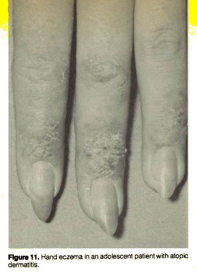 Figure 11. Hand eczema in an adolescent patient with atopic dermatitis.