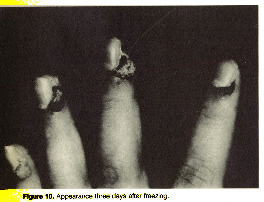 Figure 10. Appearance three days after freezing.