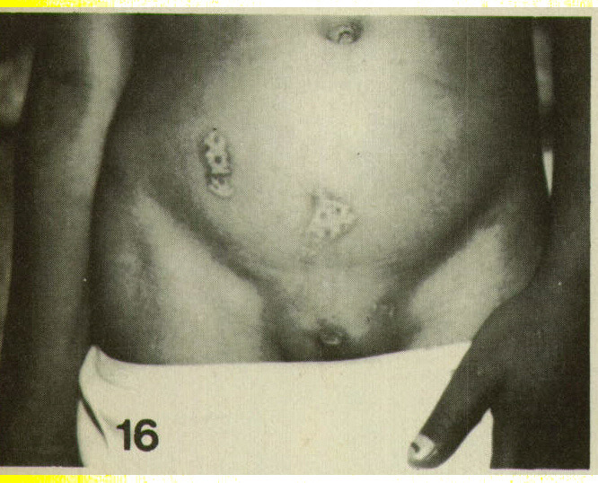 Figure 16. Repeated burns from a lighter. Patient also had smaller burns on palms, with swelling and infection.