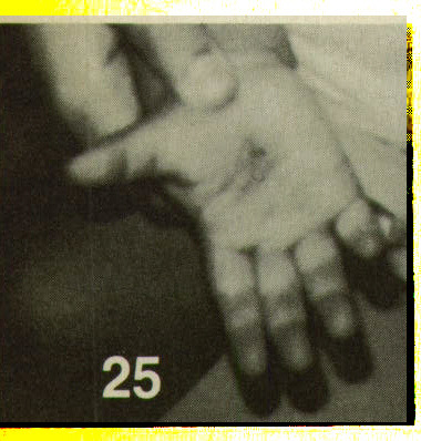 Figure 25. Burns on palm, said to be from an iron. Note burn on index finger.