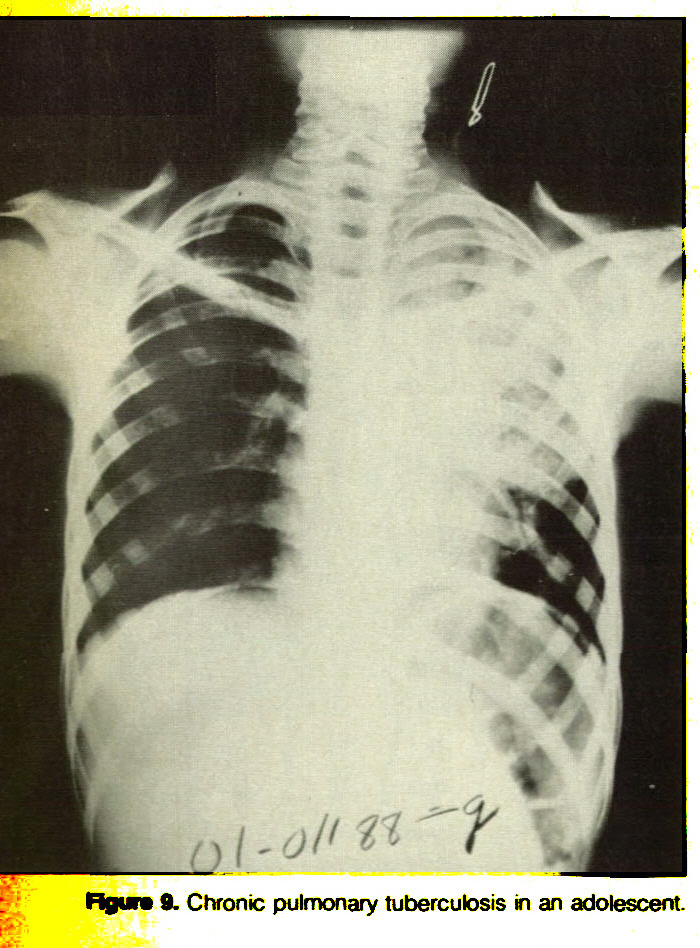 Figura 8. Chronic pulmonary tuberculosis in an adolescent.