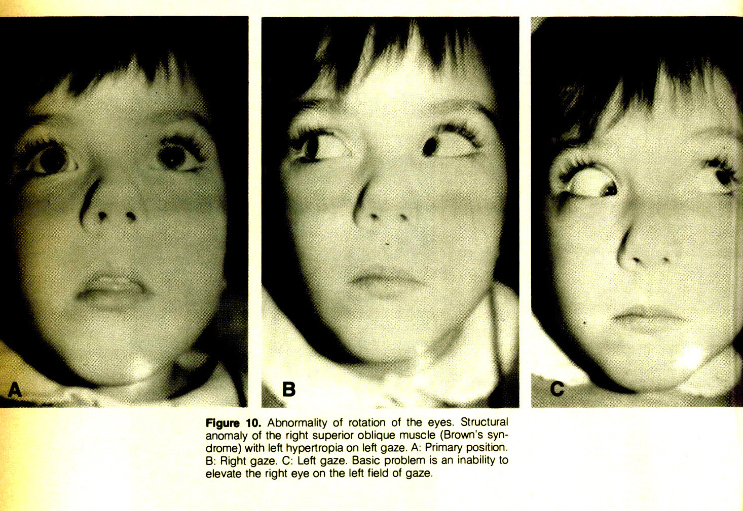 Figure 10. Abnormality of rotation of the eyes. Structural anomaly of the right superior oblique muscle (Brown's syndrome) with left hypertropia on left gaze. A: Primary position. B: Right gaze. C: Left gaze. Basic problem is an inability to elevate the right eye on the left field of gaze.