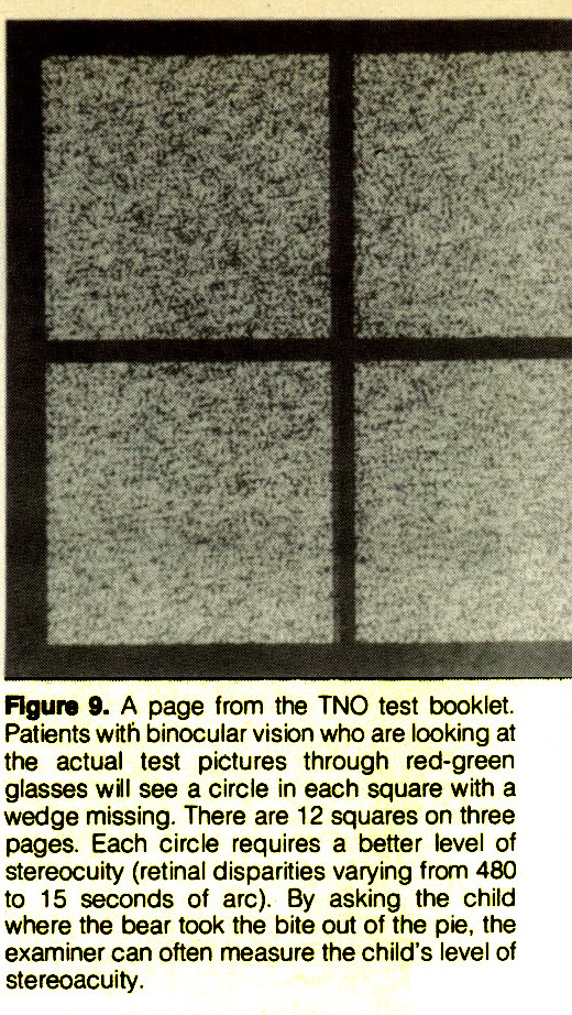 Figure 9. A page from the TNO test booklet. Patients with binocular vision who are looking at the actual test pictures through red-green glasses will see a circle in each square with a wedge missing. There are 12 squares on three pages. Each circle requires a better level of stereocuity (retinal disparities varying from 480 to 15 seconds of arc). By asking the child where the bear took the bite out of the pie, the examiner can often measure the child's level of stereoacuity.