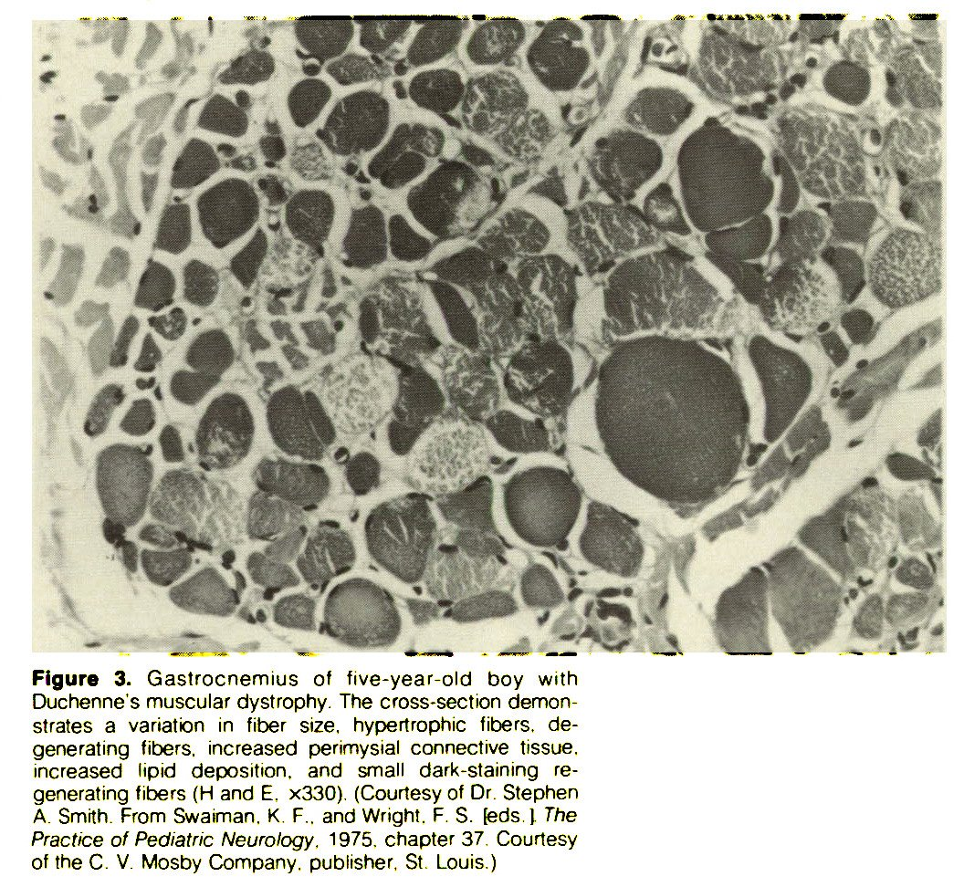 Figure 3. Gastrocnemius of five-year-old boy with Duchenne's muscular dystrophy. The cross-section demonstrates a variation in fiber size, hypertrophic fibers, degenerating fibers, increased perimysial connective tissue, increased lipid deposition, and small dark-staining regenerating fibers (H and E. x330). (Courtesy of Dr. Stephen A. Smith. From Swaiman. K. F.. and Wright. F. S. (eds.) The Practice of Pediatric Neurology. 1975. chapter 37. Courtesy of the C. V. Mosby Company, publisher, St Louis.)