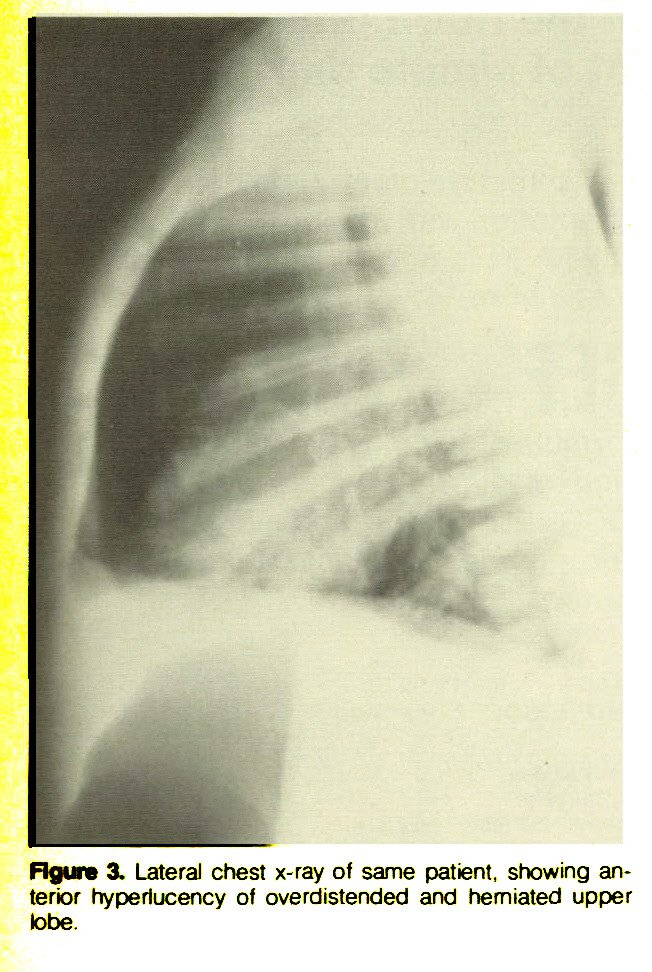 Figure 3. Lateral chest x-ray of same patient, showing anterior hyperlucency of overdistended and herniated upper lobe.