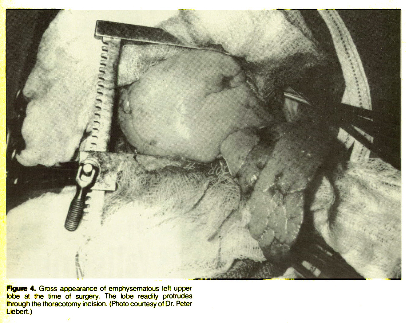 Figure 4. Gross appearance of emphysematous left upper lobe at the time of surgery. The tobe readily protrudes through the thoracotomy incision. (Photo courtesy of Dr. Peter Liebert.)