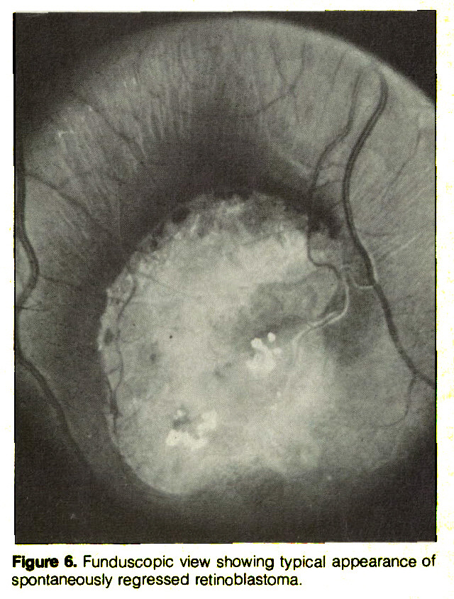 Figure 6. Funduscopic view showing typical appearance of spontaneously regressed retinoblastoma.