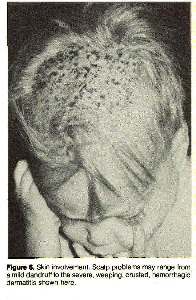 Figure 6. Skin involvement. Scalp problems may range from a mild dandruff to the severe, weeping, crusted, hemorrhagic dermatitis shown here.