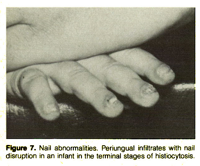 Figure 7. Nail abnormalities. Periungual infiltrates with nail disruption in an infant in the terminal stages of histiocytosis.