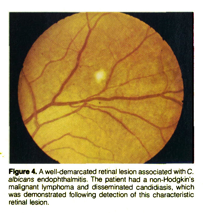 Figure 4. A well-demarcated retinal lesion associated with C. albicans endophthalmitis. The patient had a non-Hodgkin's malignant lymphoma and disseminated candidiasis, which was demonstrated following detection of this characteristic retinal lesion.
