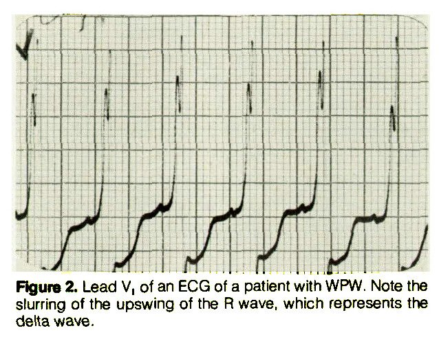 Figure 2. Lead V1 of an ECG of a patient with WPW. Note the slurring of the upswing of the R wave, which represents the delta wave.