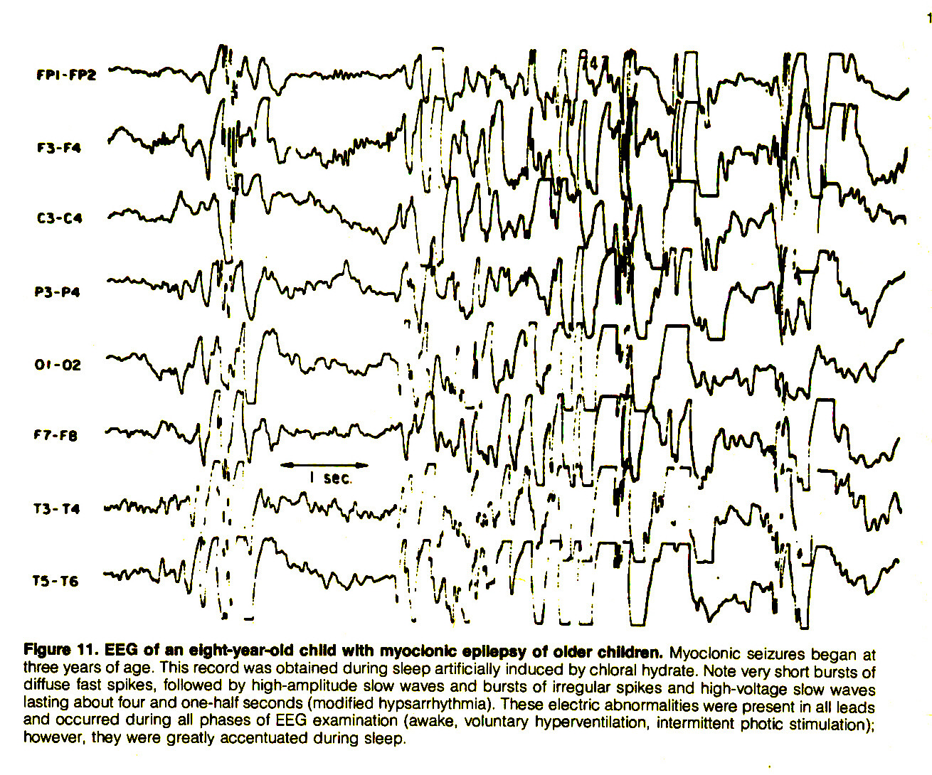 Figure 11. EEQ of an eight-year-old child with myoclonic epilepsy of older children. Myoclonic seizures began at three years of age. This record was obtained during sleep artificially induced by chloral hydrate. Note very short bursts of diffuse fast spikes, followed by high-amplitude slow waves and bursts of irregular spikes and high-voltage slow waves lasting about four and one-half seconds (modified hypsarrhythmia). These electric abnormalities were present in all leads and occurred during all phases of EEG examination (awake, voluntary hyperventilation, intermittent photic stimulation); however, they were greatly accentuated during sleep.