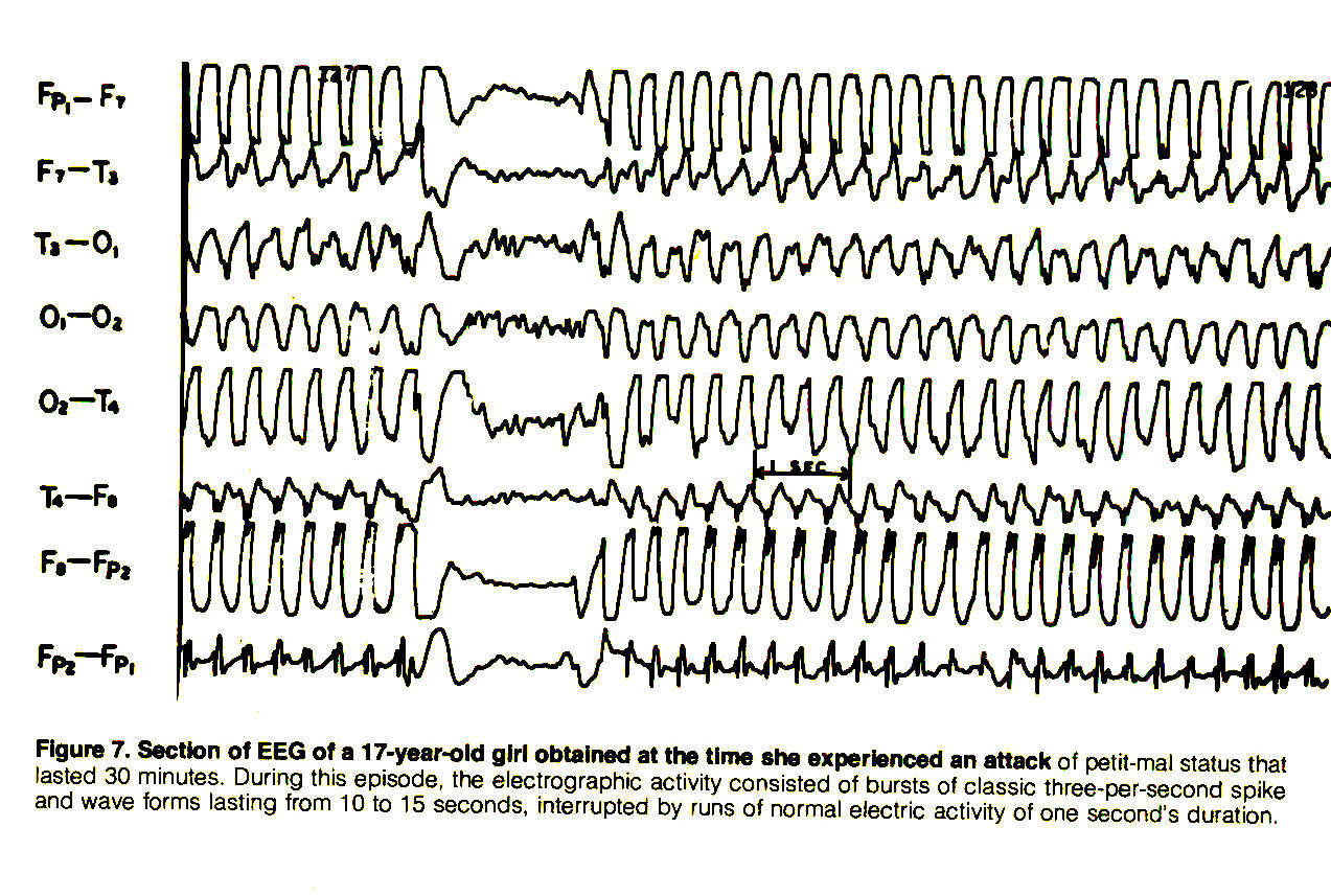 Figure 7. Section of EEG of a 17-year-old girl obtained at the time she experienced an attack of petit-mal status that lasted 30 minutes. During this episode, the electrographic activity consisted of bursts of classic three-per-second spike and wave forms lasting from 10 to 15 seconds, interrupted by runs of normal electric activity of one second's duration.