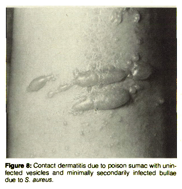 Figure 8: Contact dermatitis due to poison sumac with uninfected vesicles and minimally secondarily infected bullae due to S. aureus.