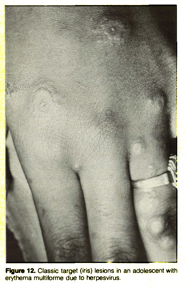 Figure 12. Classic target (iris) lesions in an adolescent with erythema multiforme due to herpesvirus.
