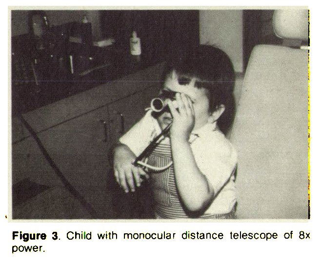 Figure 3, Child with monocular distance telescope of 8x power.